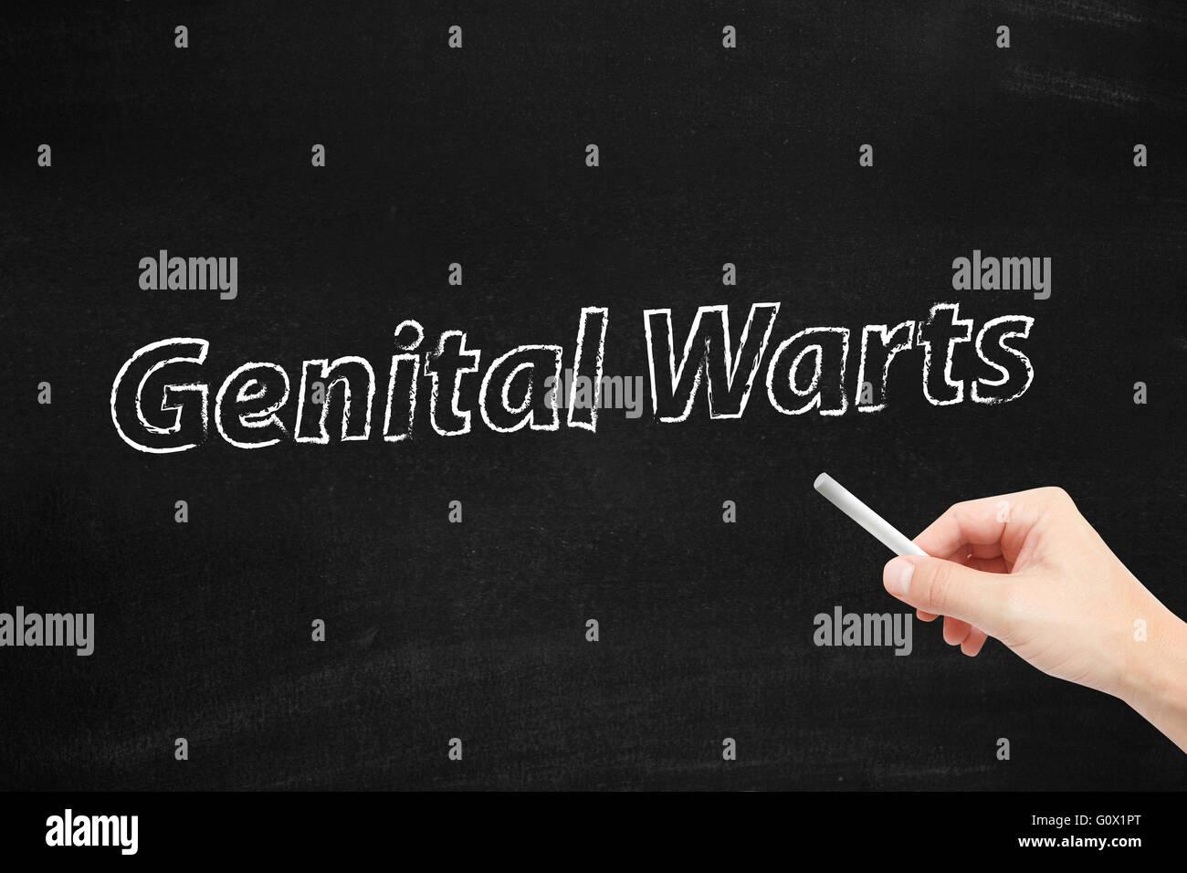 Genital Warts written on a blackboard - Stock Image