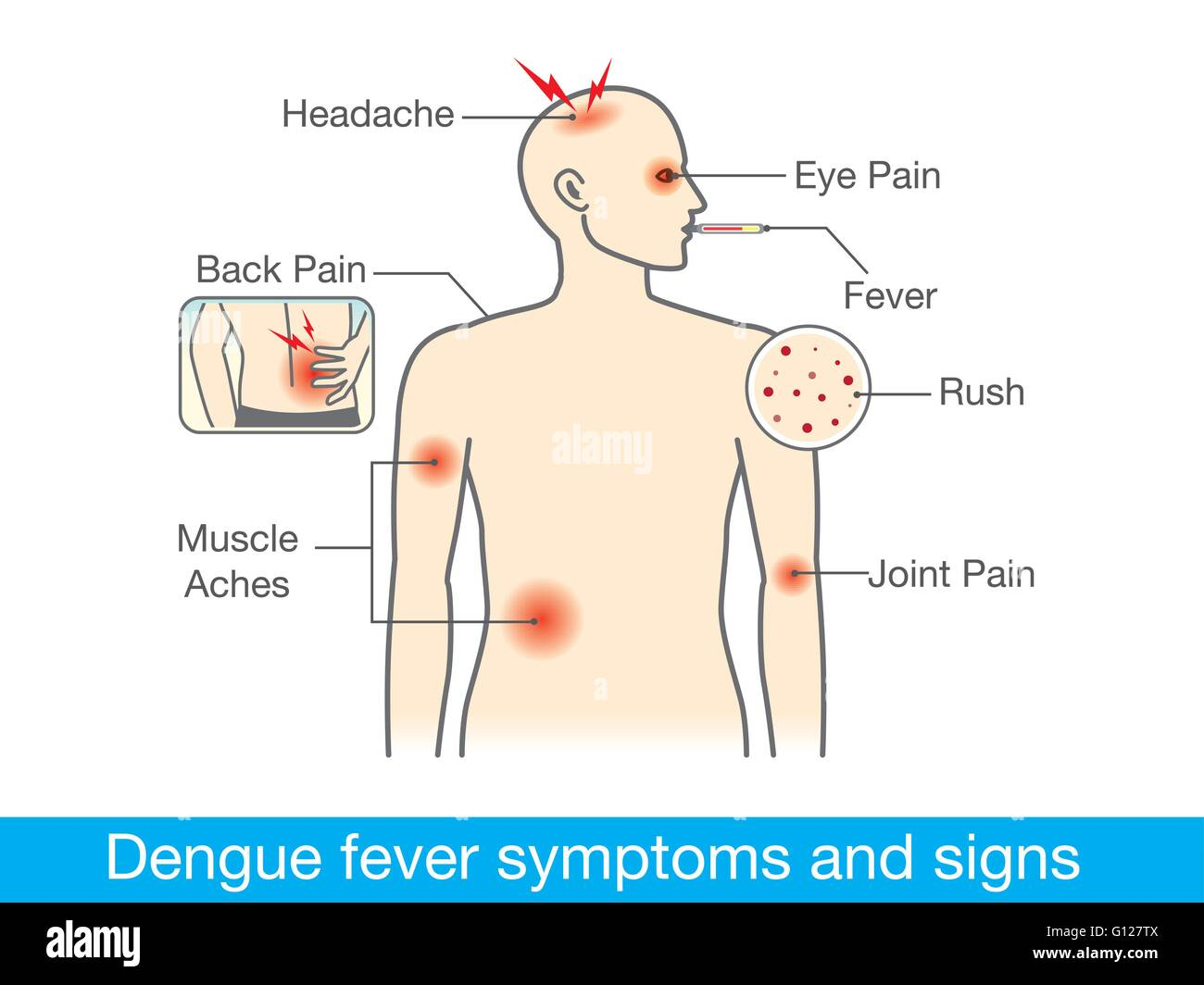 Dengue fever symptoms and signs - Stock Image