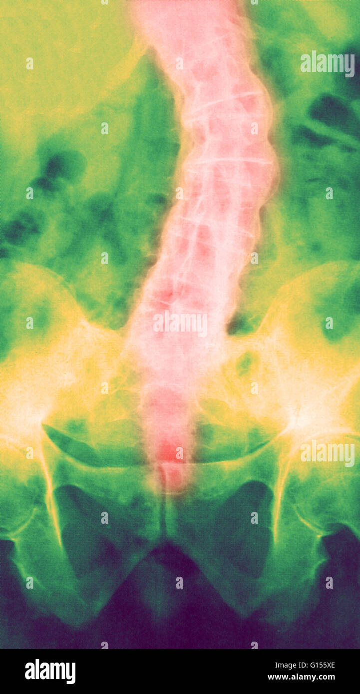 Color enhanced X-ray of ankylosing spondylitis is a degenerative inflammatory disease, most common in young men, - Stock Image