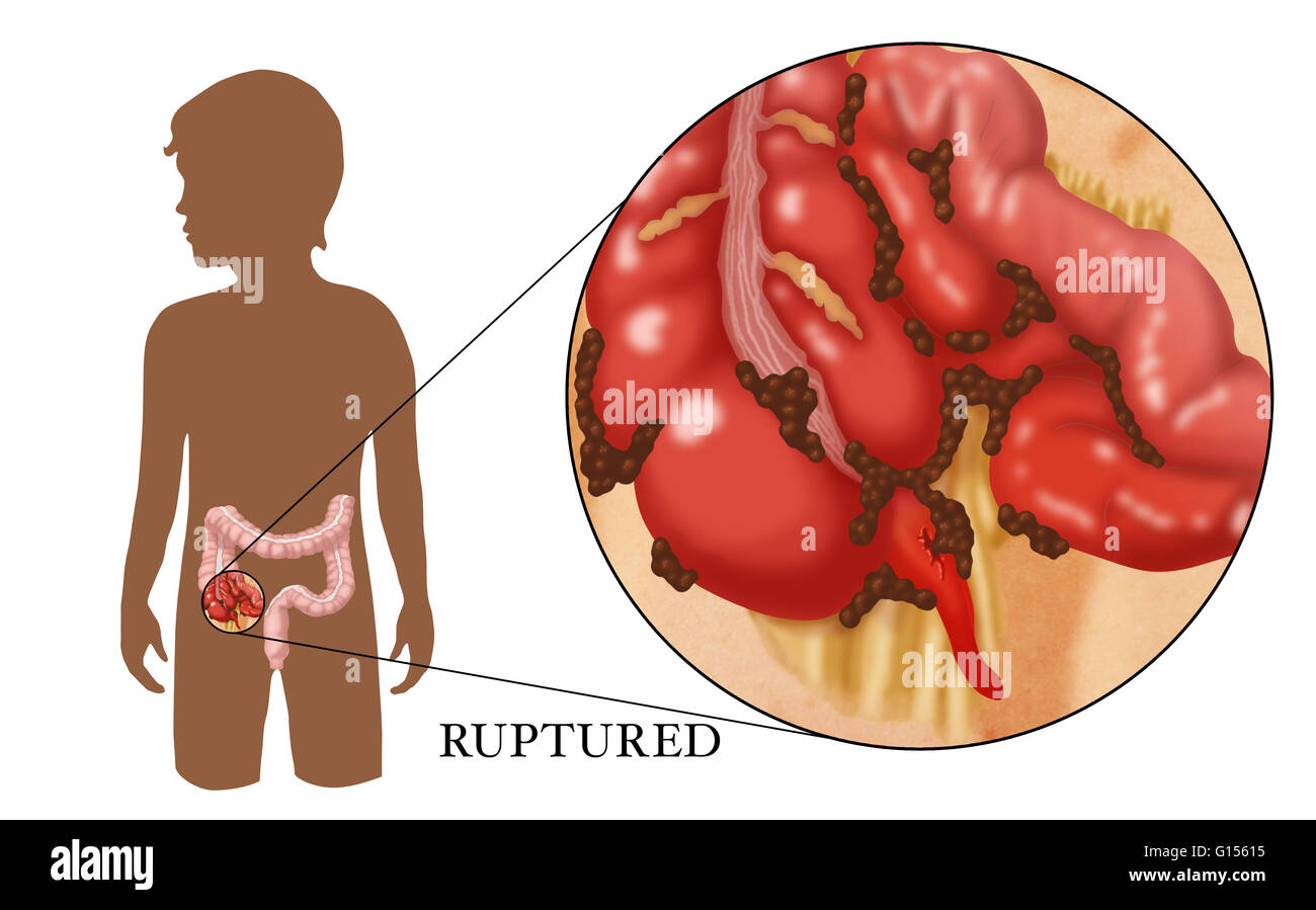 An Illustration of a ruptured appendix caused by untreated Stock ...