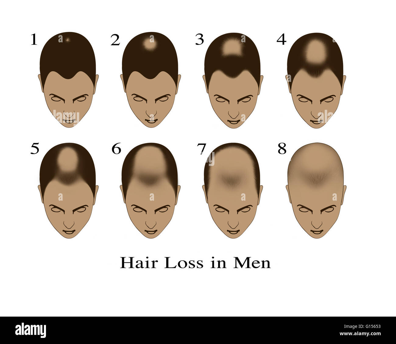Male Pattern Baldness Stages Amazing Design