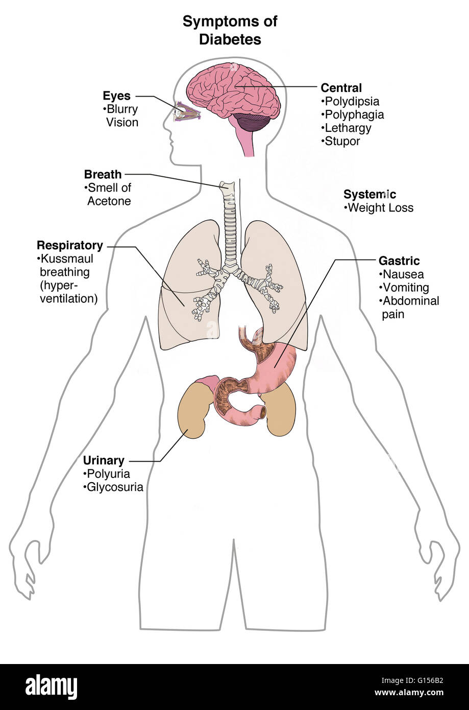 An illustration showing the many symptoms of diabetes. - Stock Image