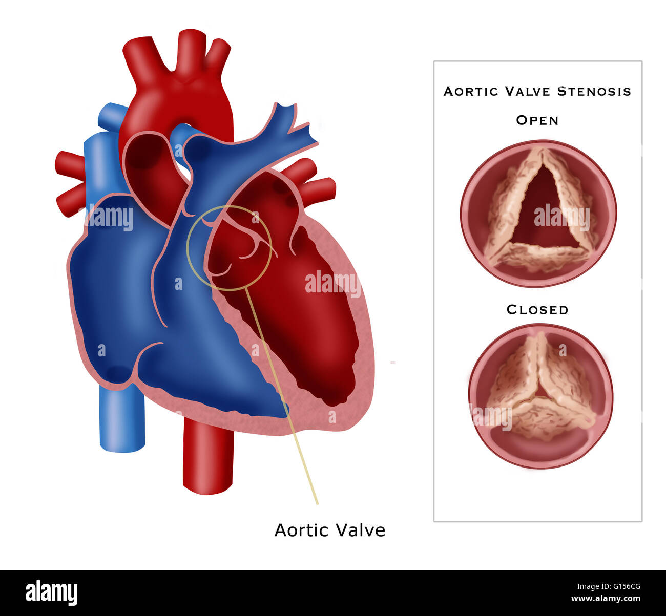 Illustration of aortic valve stenosis, a type of valvular heart ...