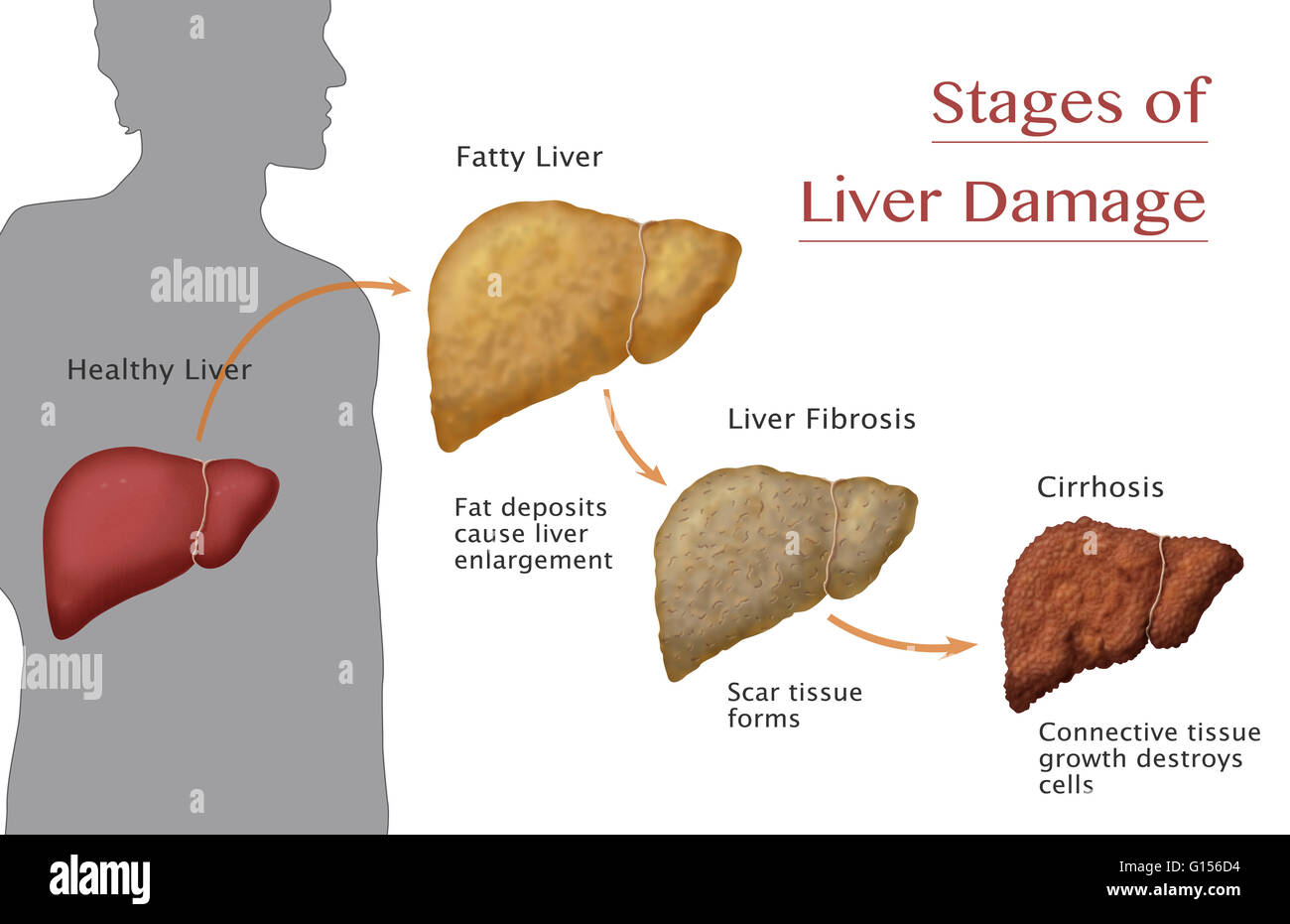 Final Stages Of Liver Cancer