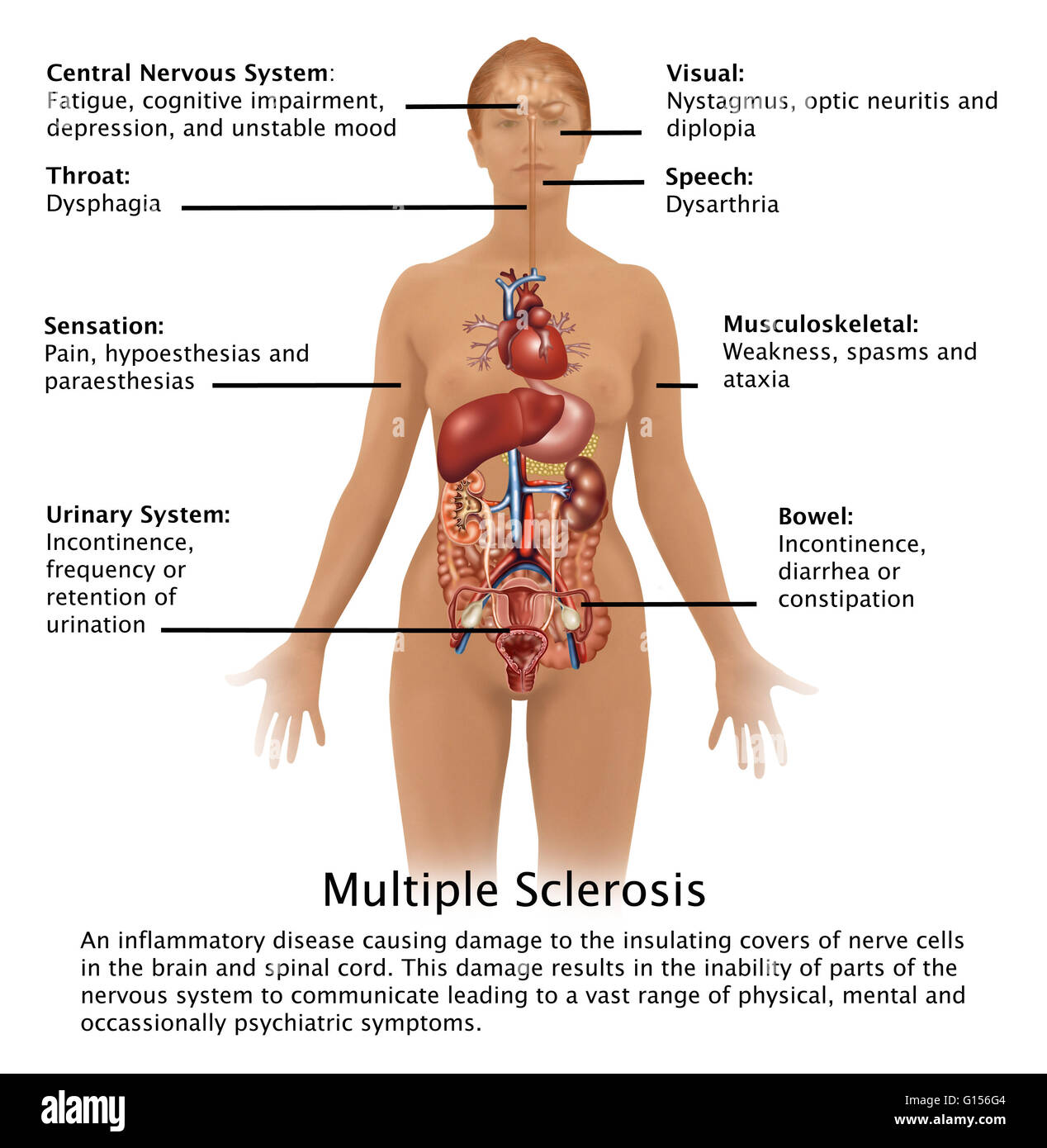 Diagram Showing The Symptoms Of Multiple Sclerosis And Their Cell Location In Human Body Is An Inflammatory Disease Causing Damage To