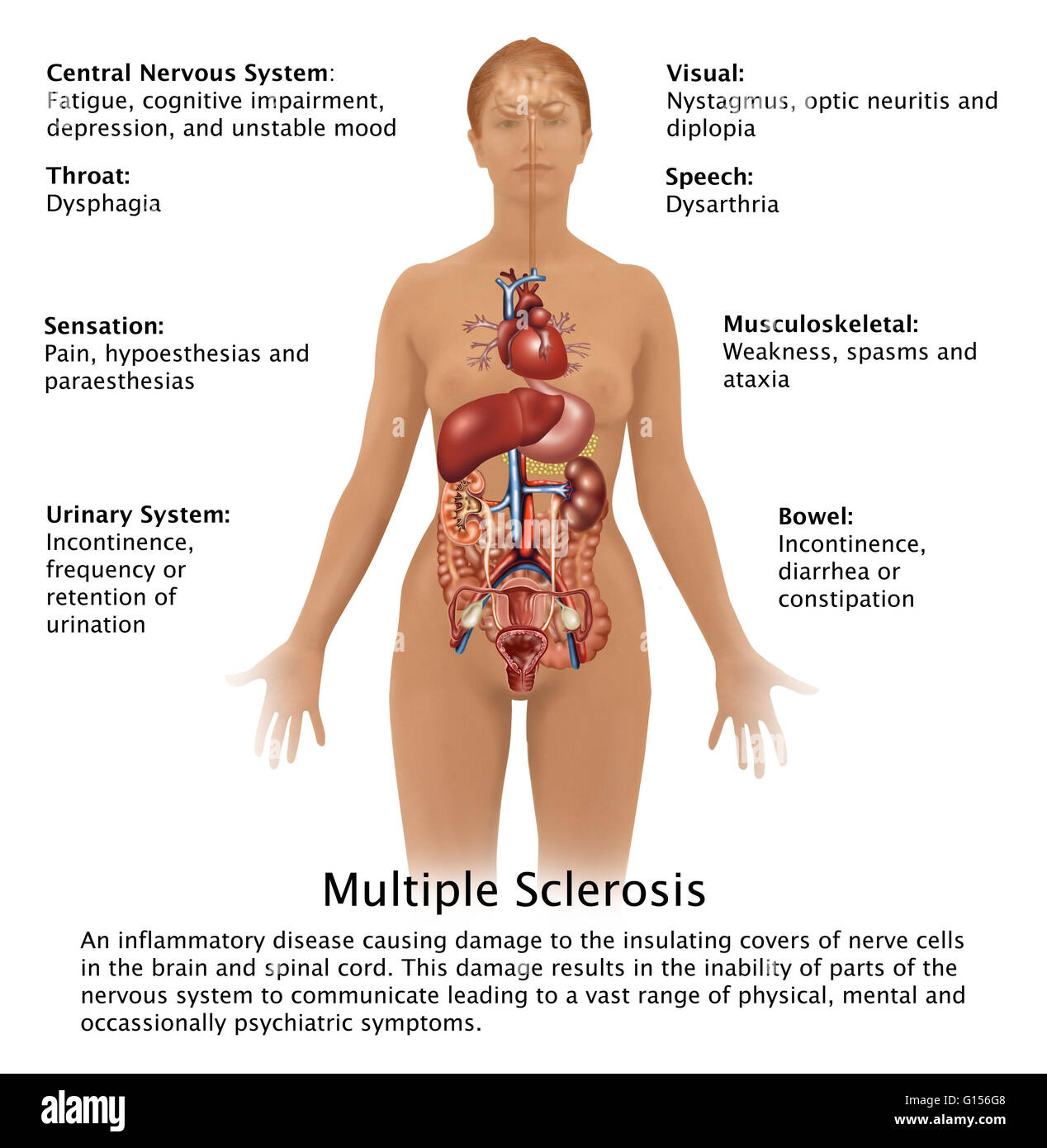 diagram showing the symptoms of multiple sclerosis and their