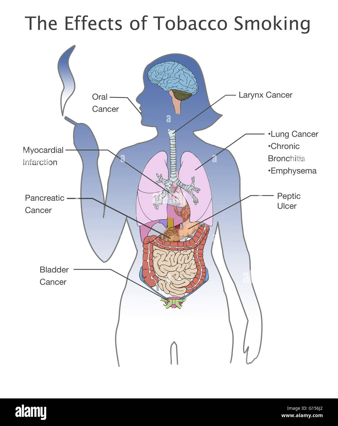 Illustration showing the wide range of adverse health effects that illustration showing the wide range of adverse health effects that smoking tobacco can cause and their locations in the human body including clockwise ccuart Images