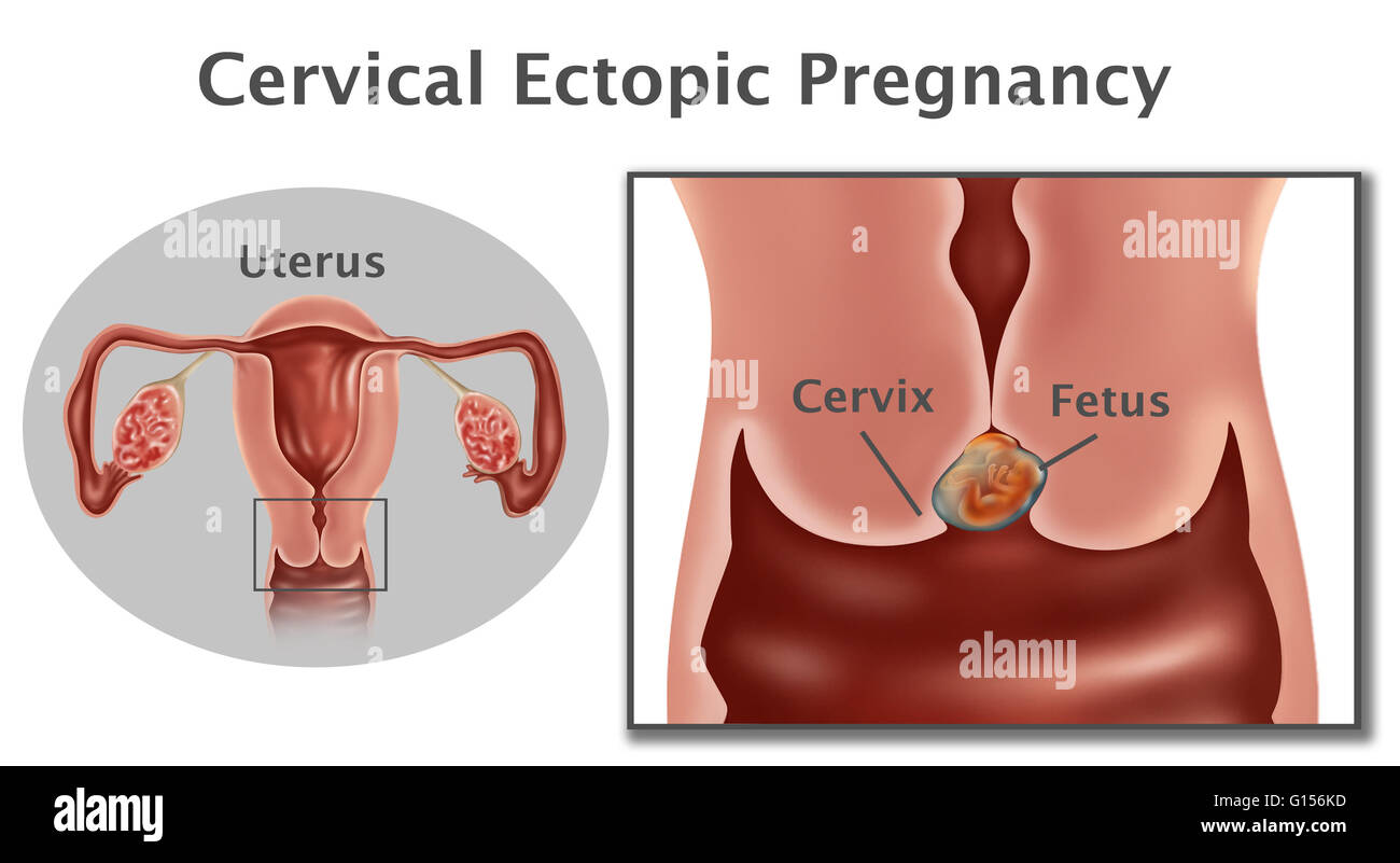 Ectopic pregnancy stock photos ectopic pregnancy stock images alamy illustration of a cervical pregnancy this is a type of ectopic pregnancy where the fetus ccuart Images