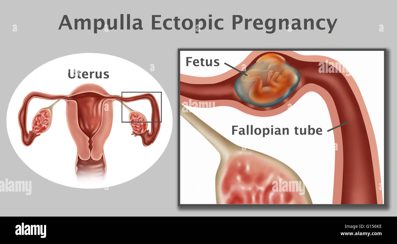 Illustration of an ampulla ectopic pregnancy a fetus growing in the illustration of an ampulla ectopic pregnancy a fetus growing in the ampulla the second portion of the fallopian tube an ampullar pregnancy is the most ccuart Gallery