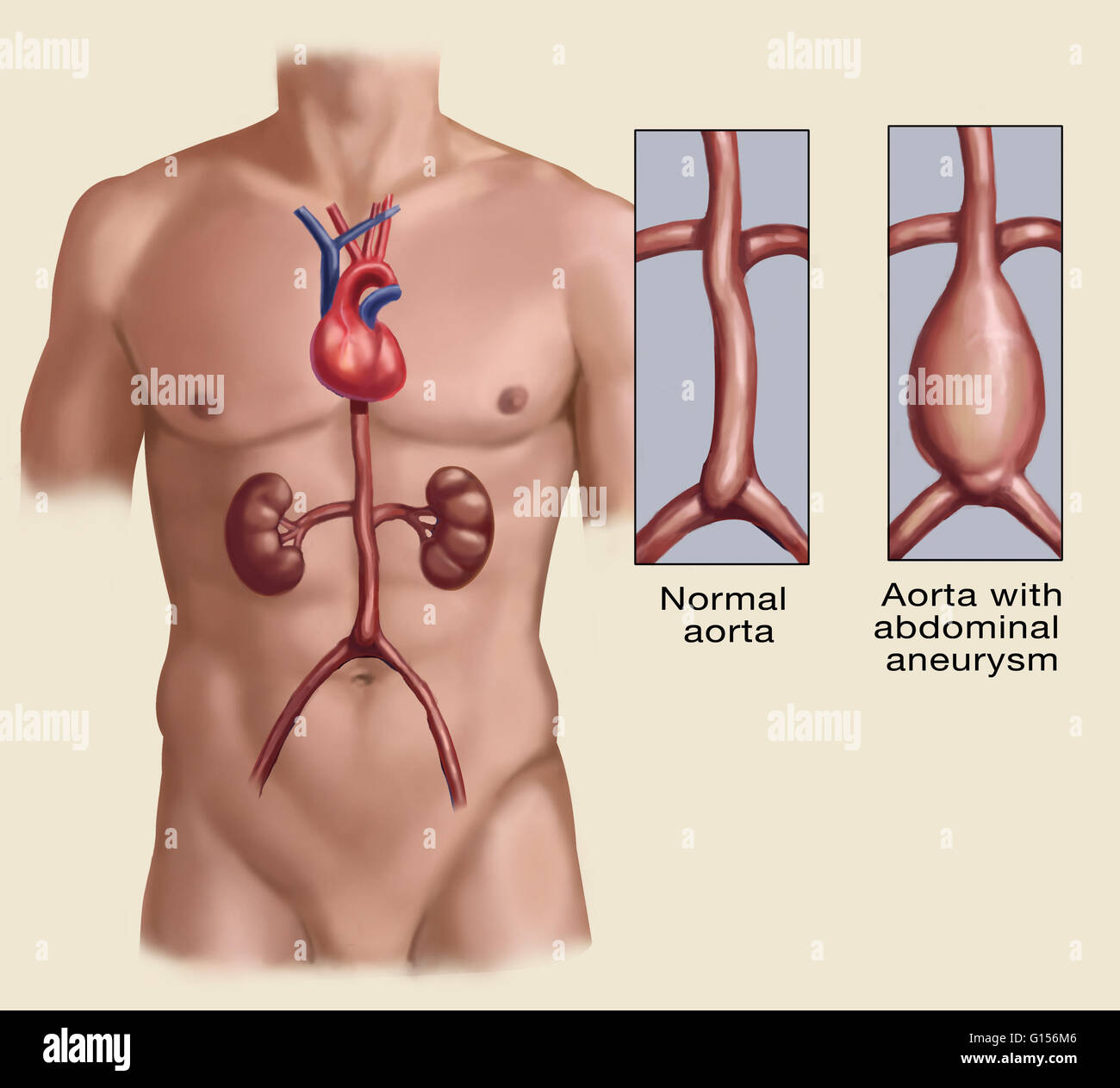 Appearance of a normal abdominal aorta and one with abdominal aortic ...