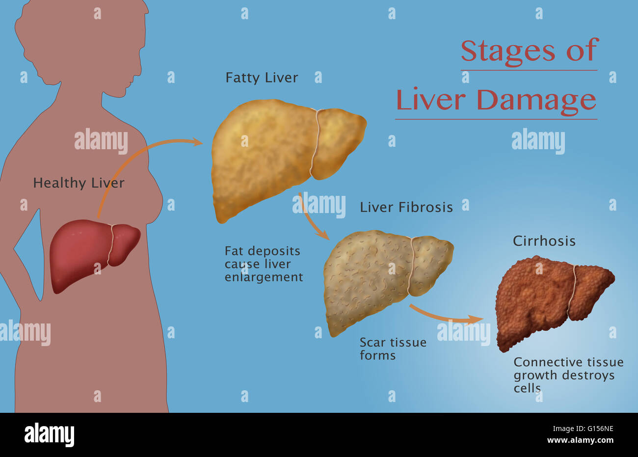 Stages of liver disease stock photos stages of liver disease stock stages of liver damage due to alcoholism first alcohol compromises the liver causing large ccuart Image collections