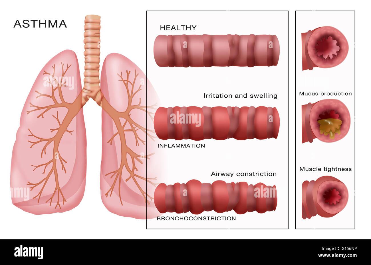 bronchiole asthma stock photos amp bronchiole asthma stock