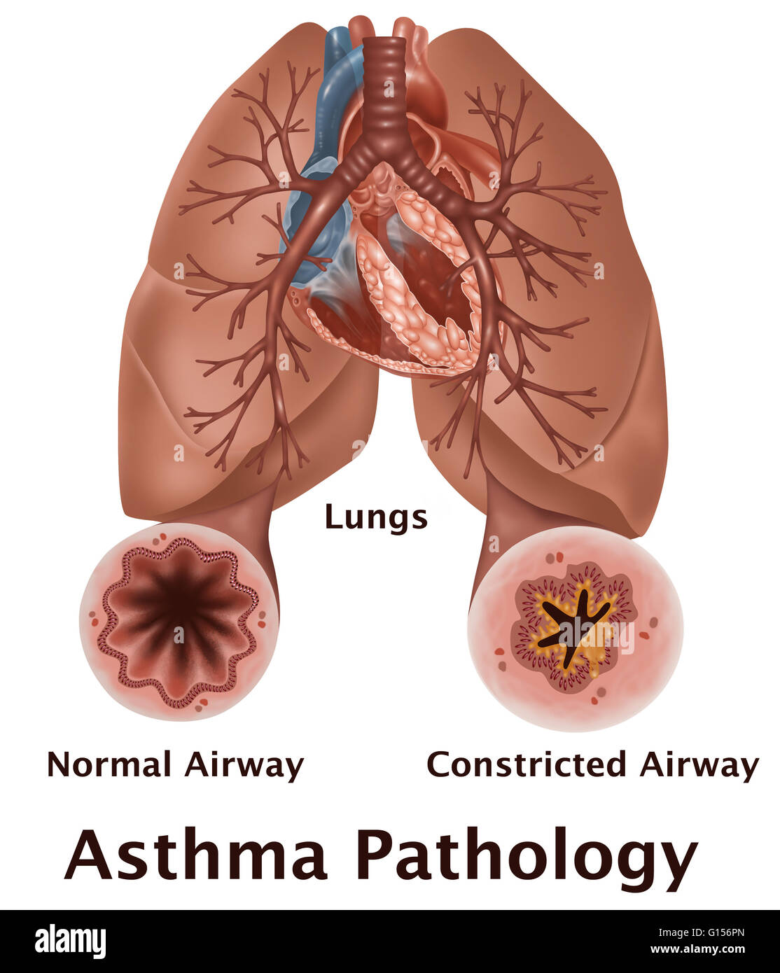 Asthma Pathology. An illustration of lungs with a normal airway ...