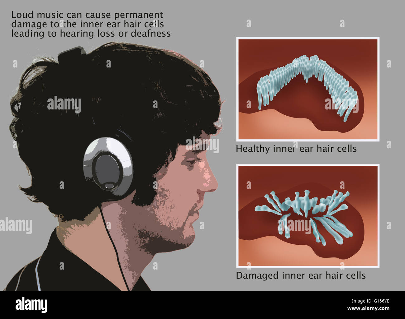 illustration of man in profile wearing noise-canceling headphones and inner ear  hair cells at