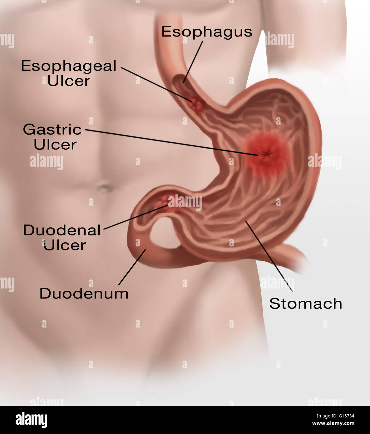 Gastric Ulcers Stock Photos & Gastric Ulcers Stock Images - Alamy