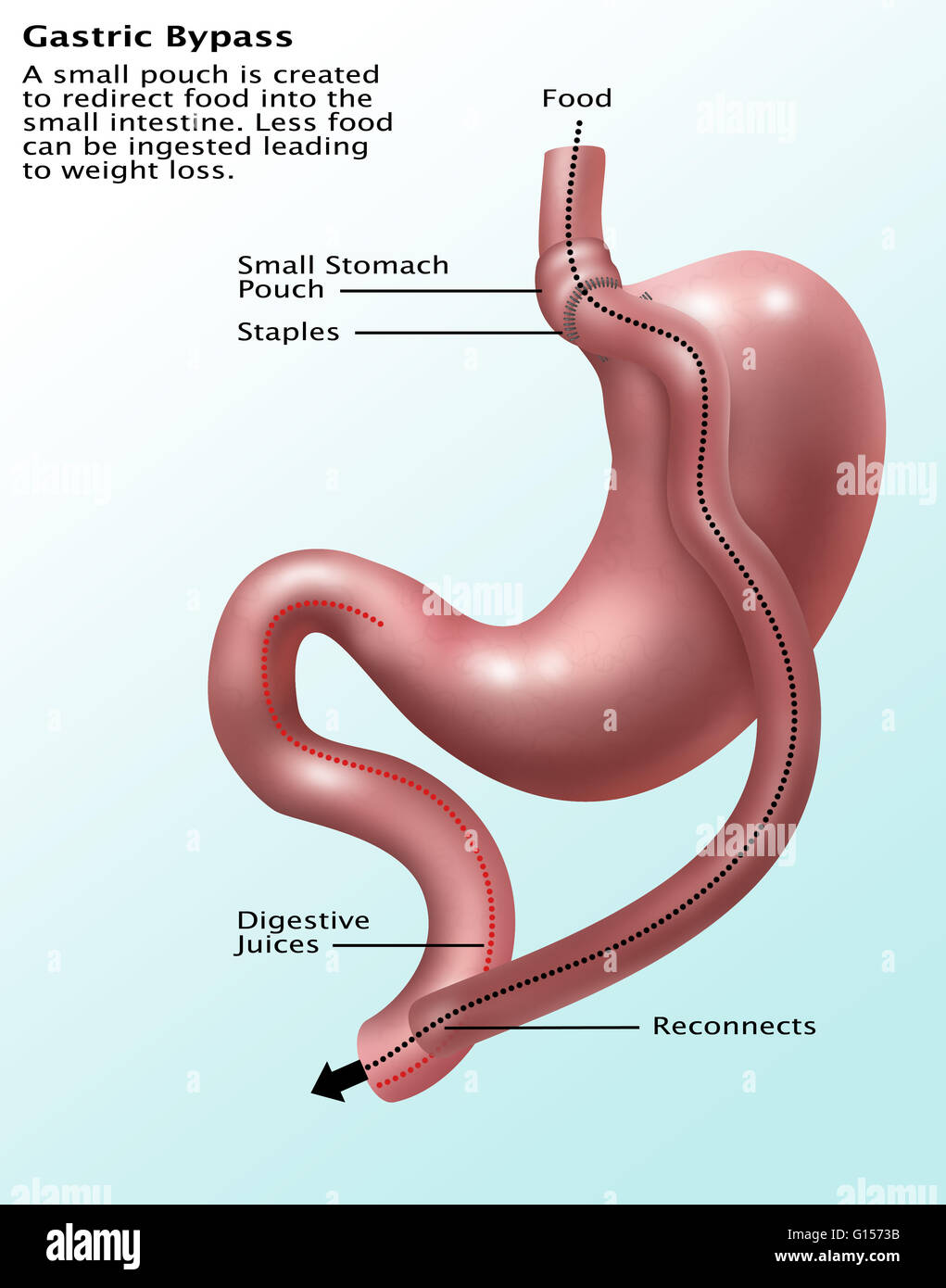 Gastric Bypass Surgery Refers To A Surgical Procedure In Which The