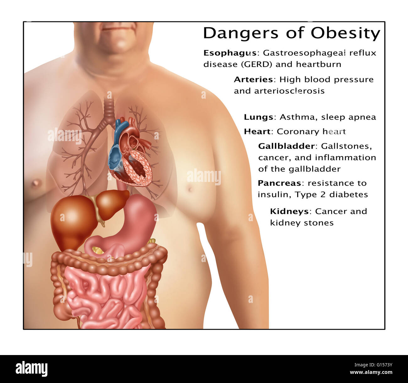 Dangers Of Obesity Some Of The Dangers Of Being Obese Include Stock Photo Alamy