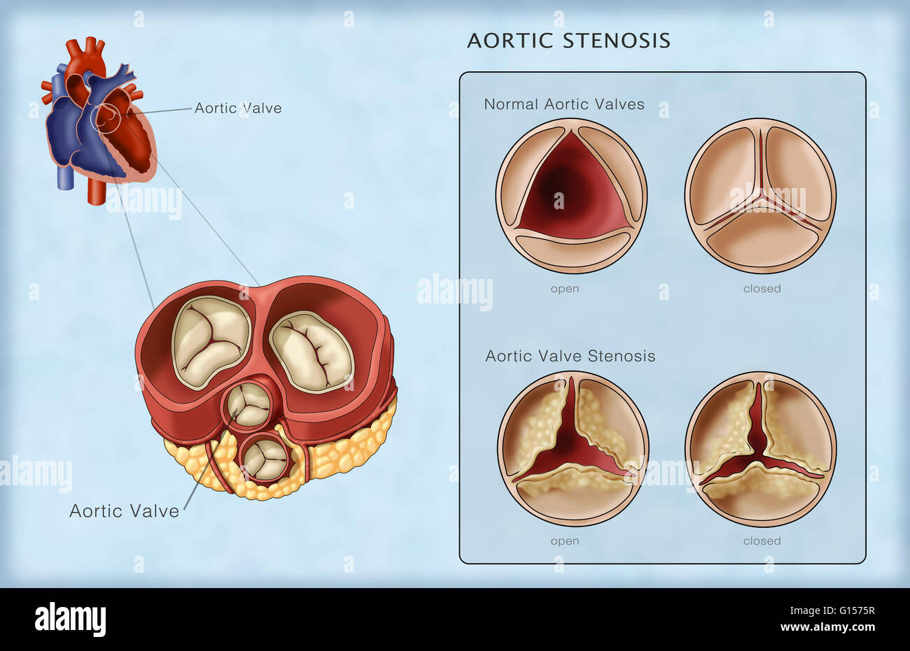 Illustration of normal aortic valves compared to an aortic valve ...