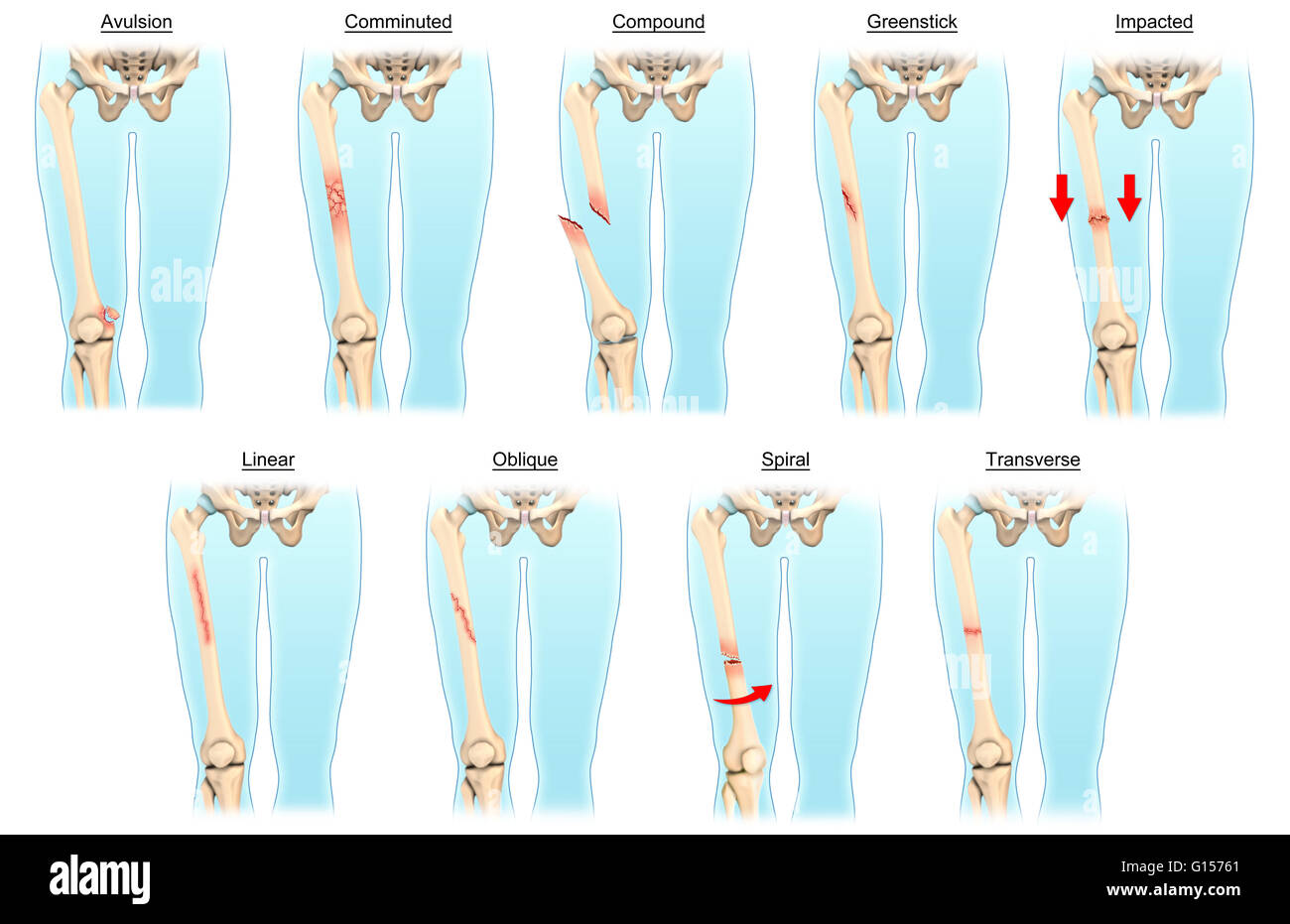 An Illustrated Diagram Depicting Various Types Of Fractures