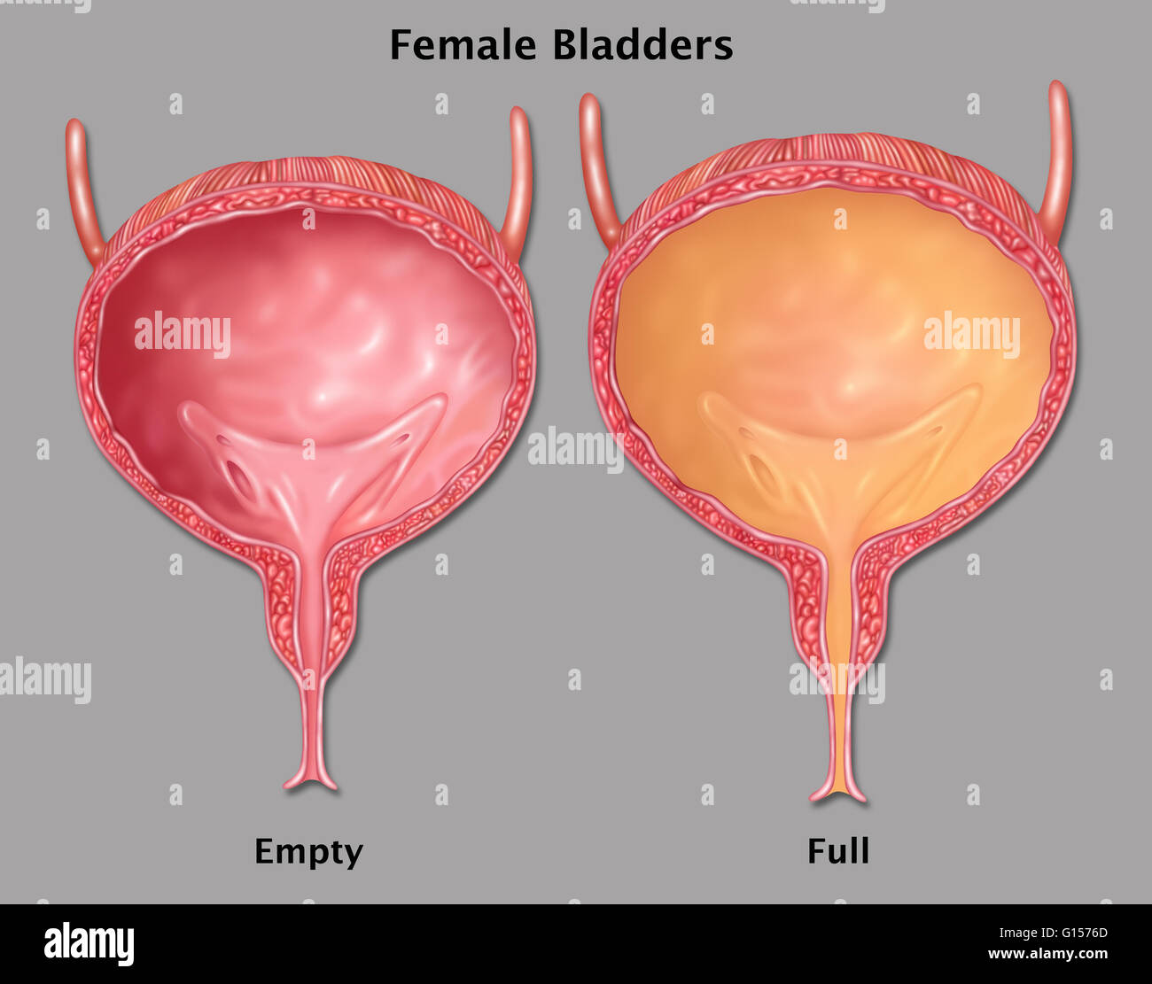 Illustration of a female bladder, empty at left and filled
