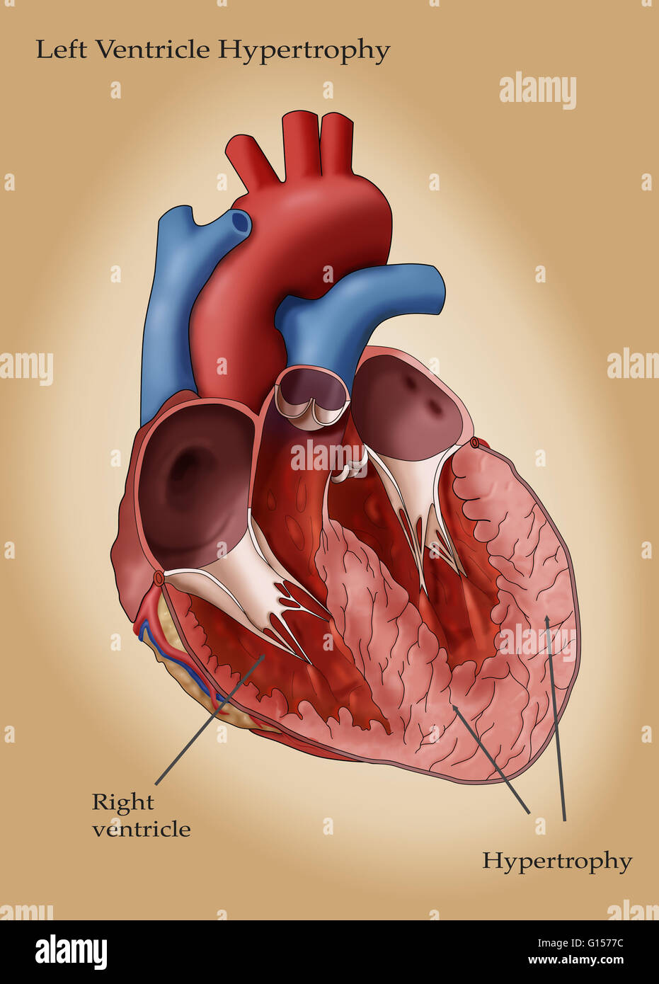 Illustration of the heart showing hypertrophy in the left ventricle ...