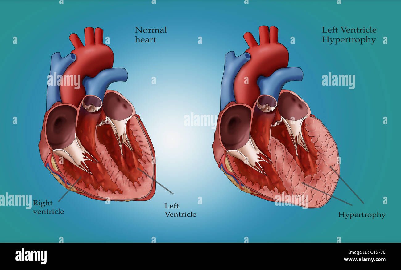 Illustration showing a normal heart at left and a heart with left ...