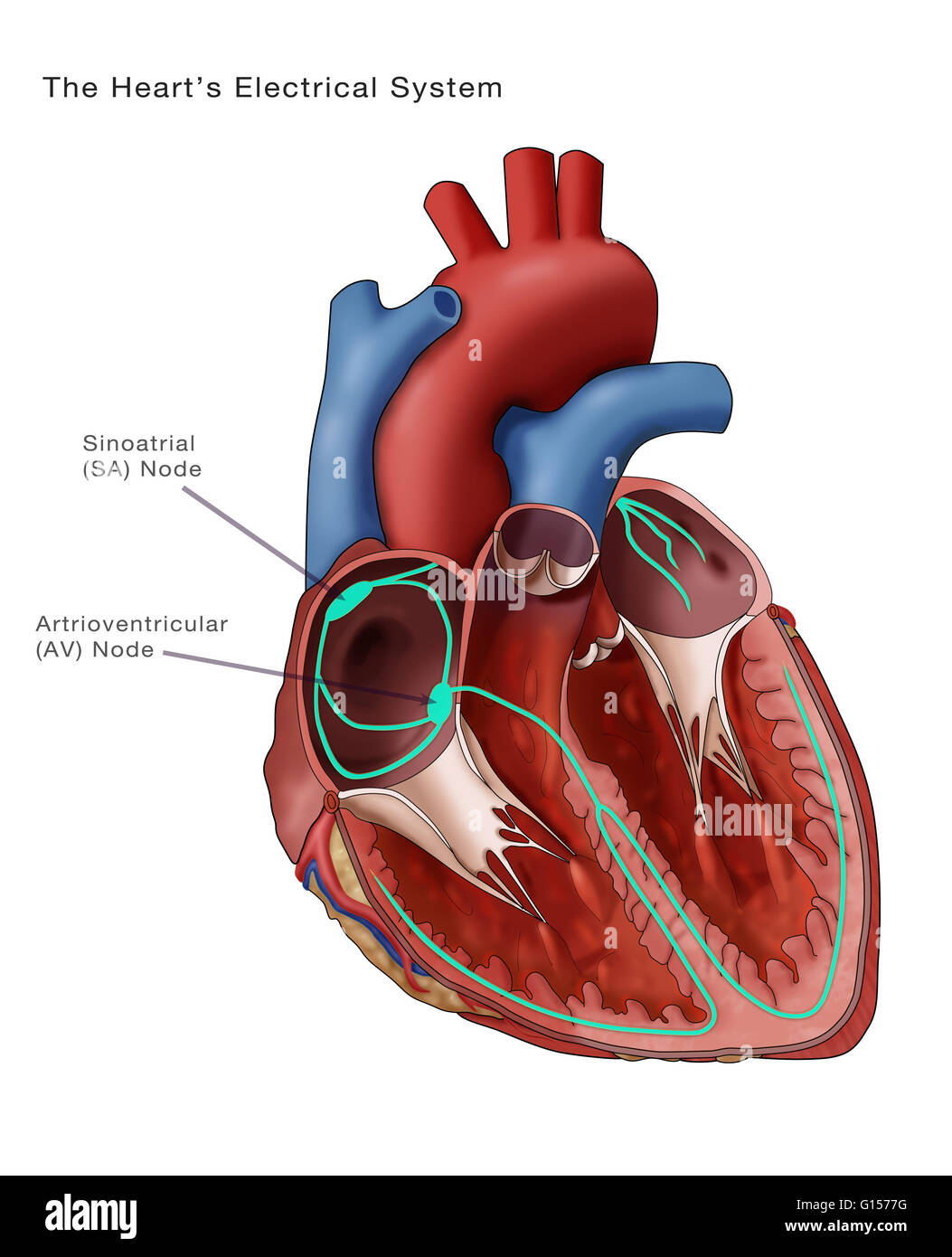 Illustration depicting the hearts electrical system annotated are illustration depicting the hearts electrical system annotated are the sinoatrial node and the atrioventricular node the sinoatrial sa node thick green ccuart Images