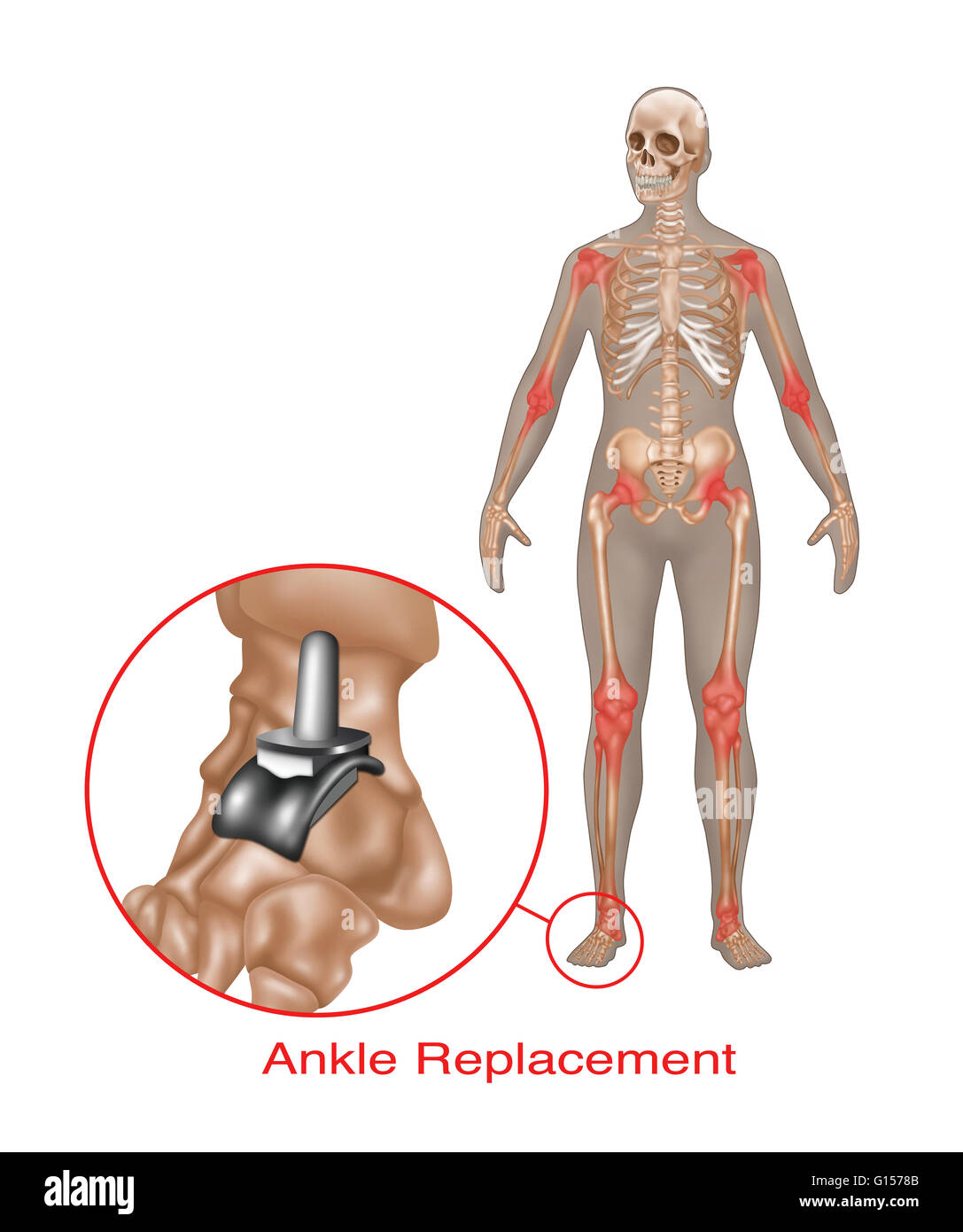 Illustration of an ankle joint replacement Stock Photo: 103992347 ...