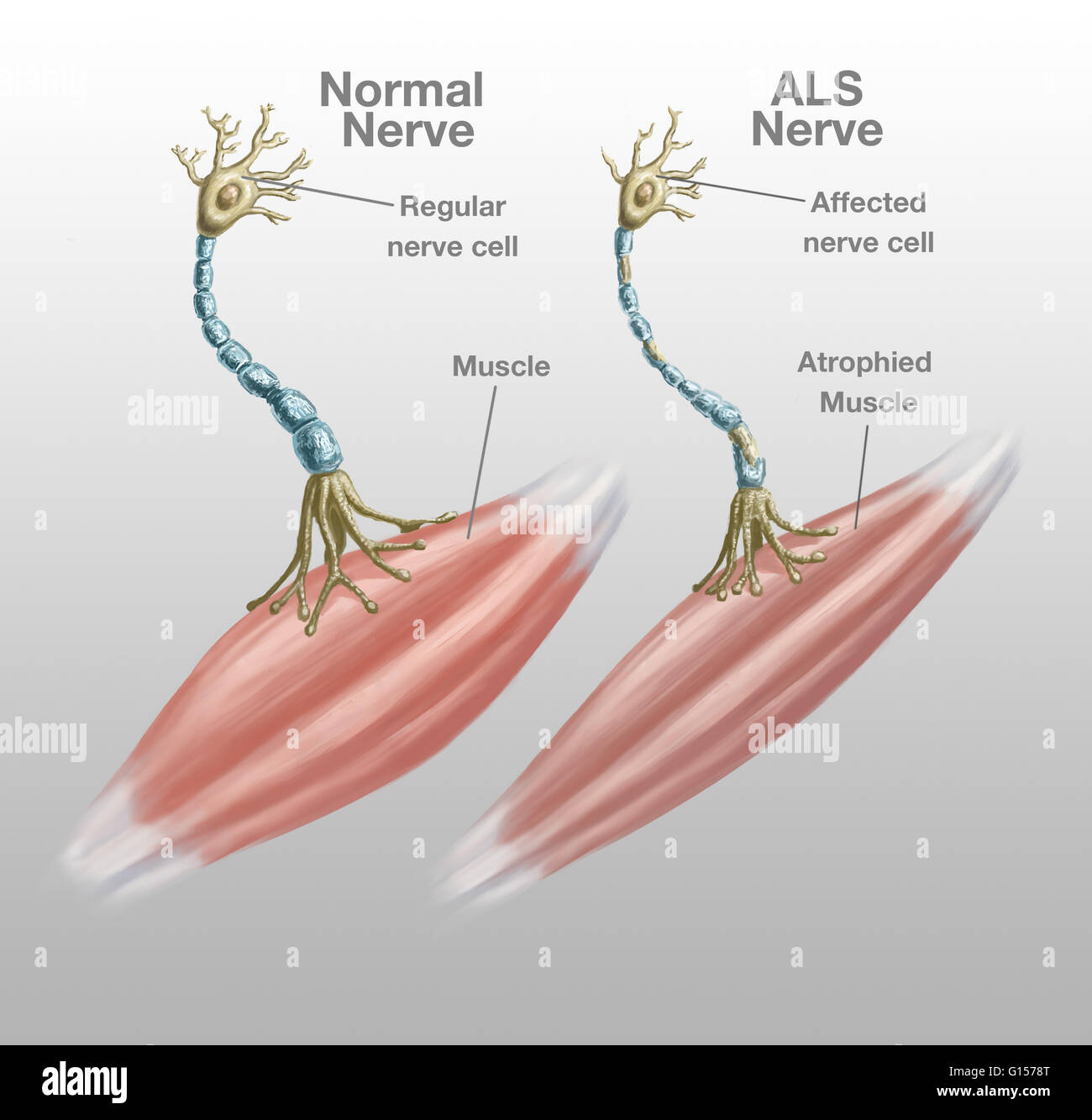 illustration of a normal nerve structure left and an als affected