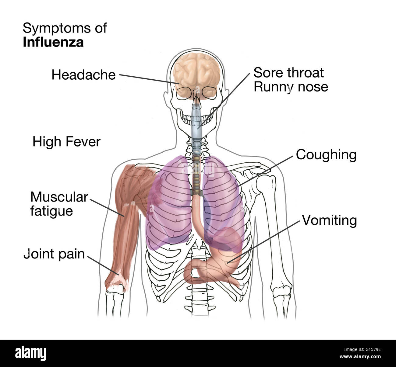Illustration showing symptoms and location of the symptom when Stock ...
