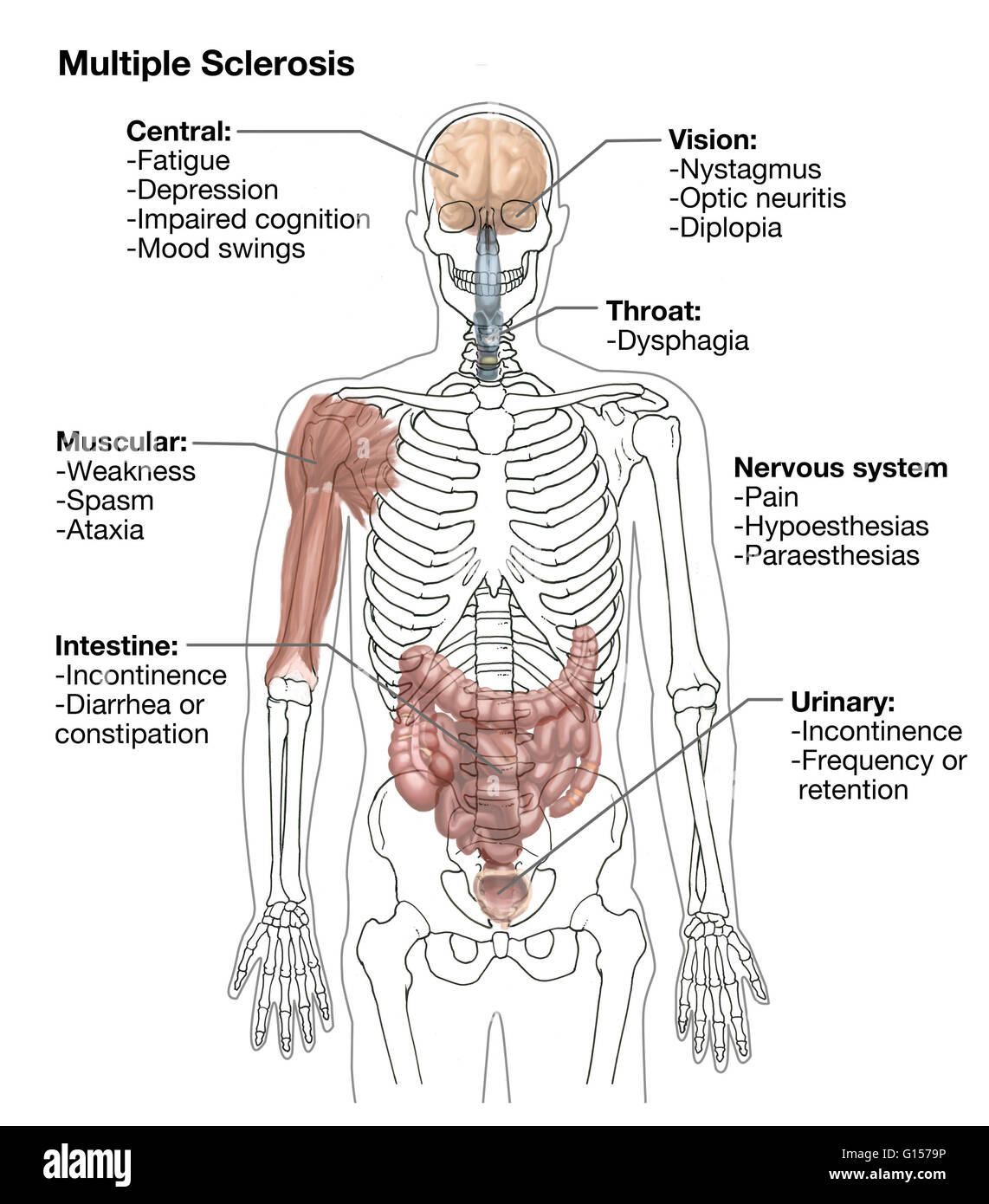 Illustration Showing Symptoms Of Multiple Sclerosis In Human Anatomy