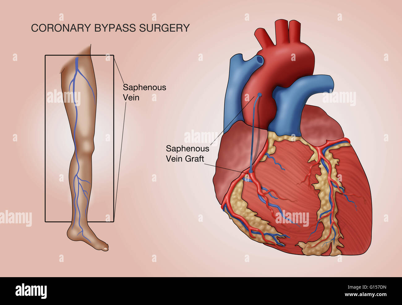 Coronary Bypass Surgery Labeled Illustration A Vessel From The