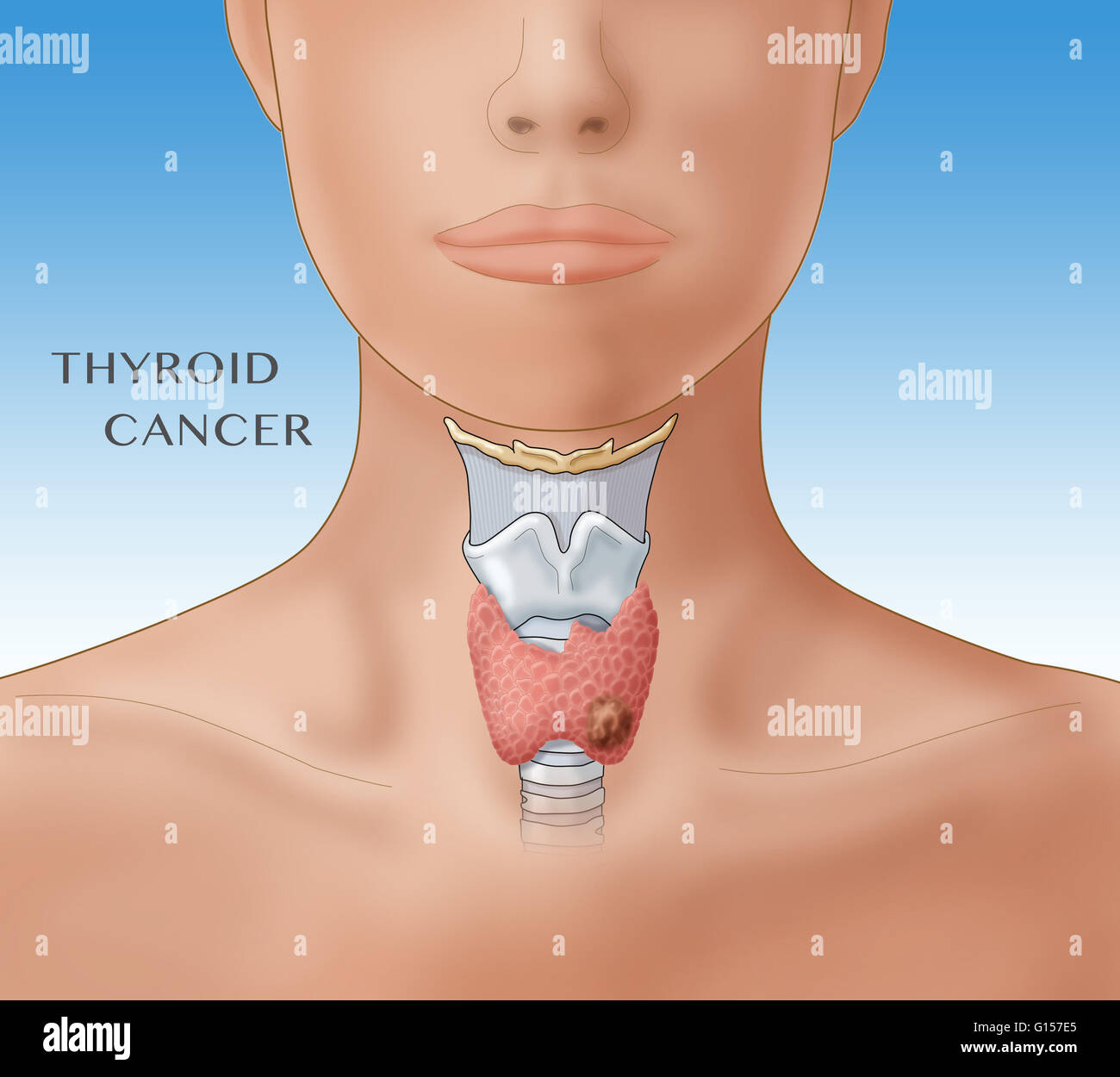 Thyroid Cancer Labeled Illustration Showing The Location Of The