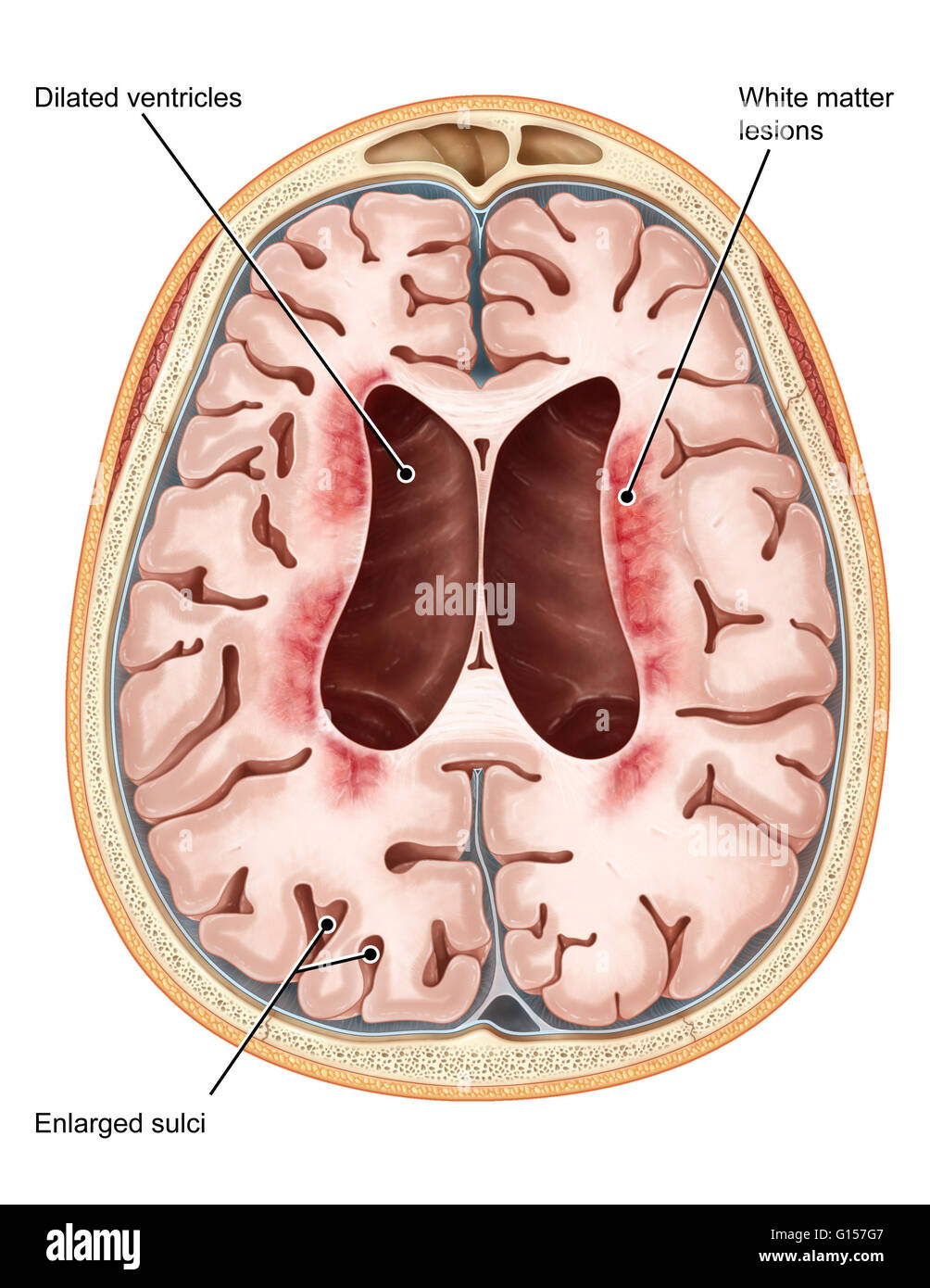 An illustrated transverse section of the brain of a patient ...