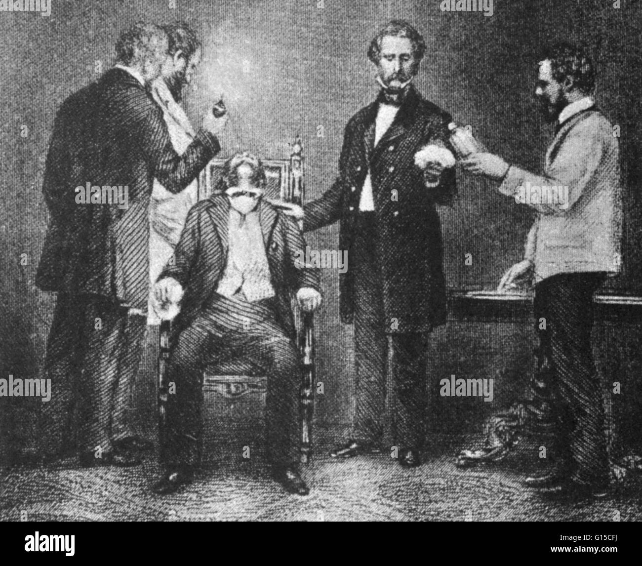 First use of surgical anesthesia. The first public demonstration of surgical anesthesia, at the Massachusetts General - Stock Image