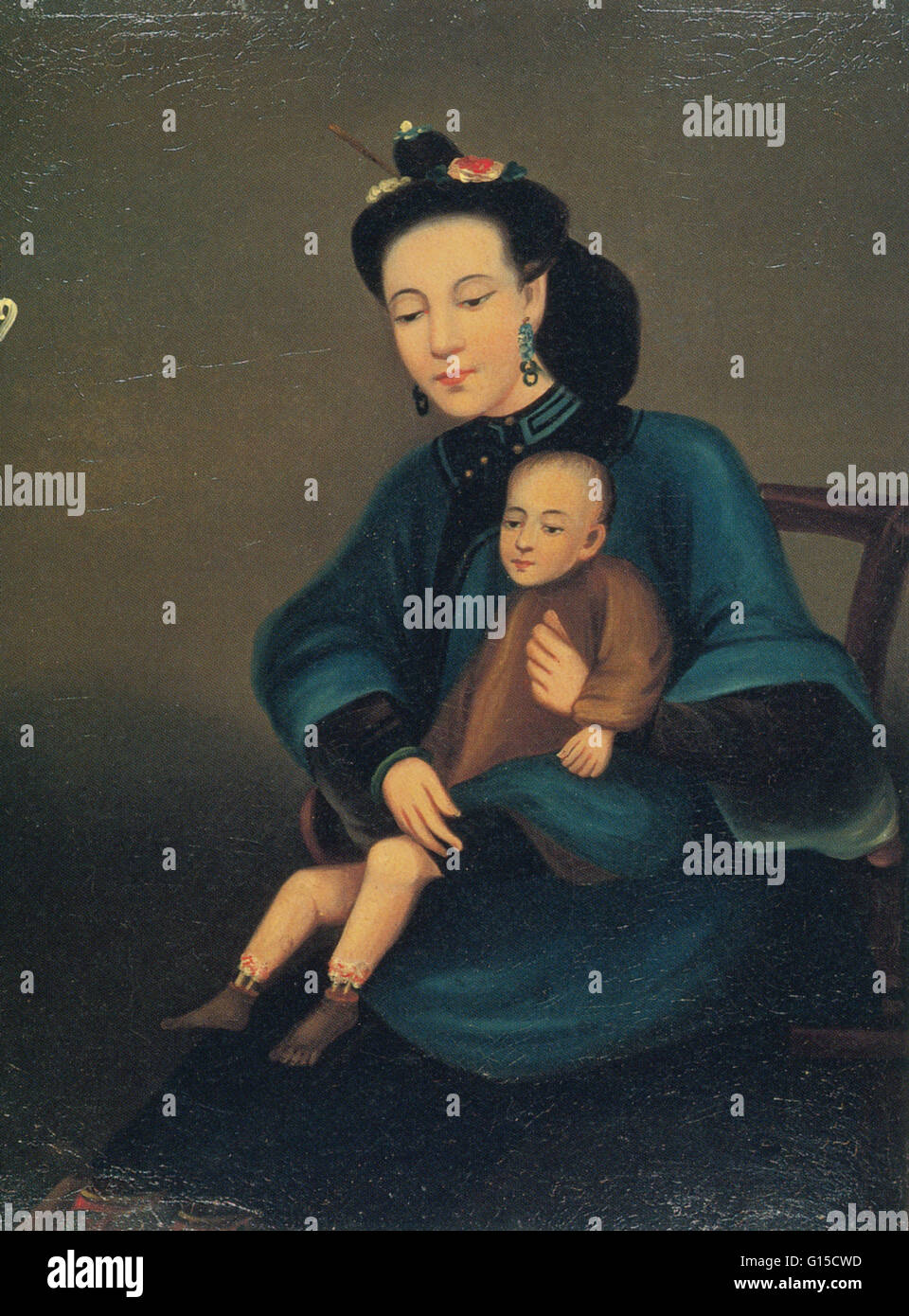 Portrayal of a mother holding a child afflicted with gangrene of the lower legs, by Lam Qua (1801-1860). - Stock Image
