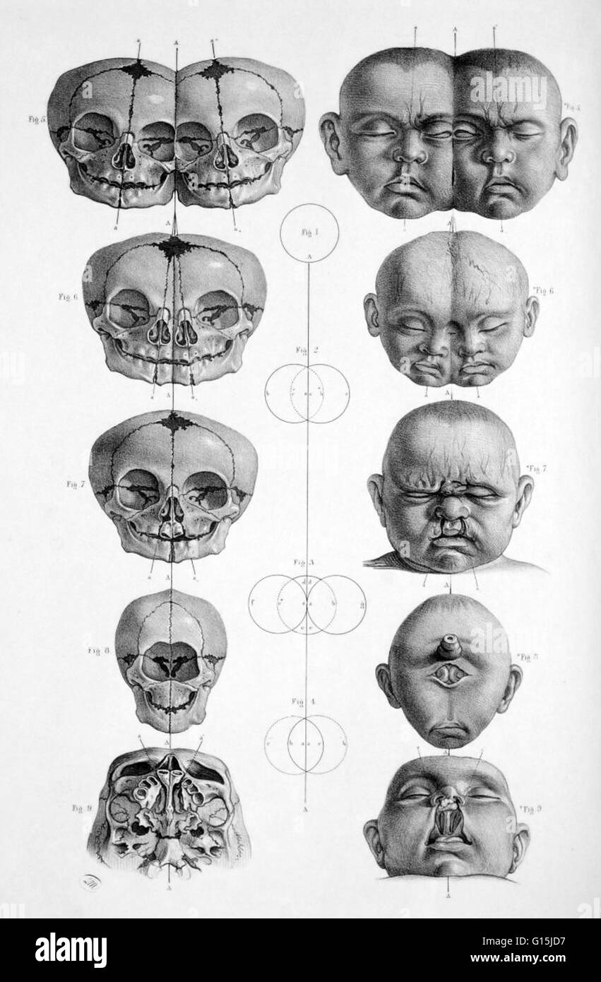 Head and skull of malformed infants; conjoined twins, bilateral ...