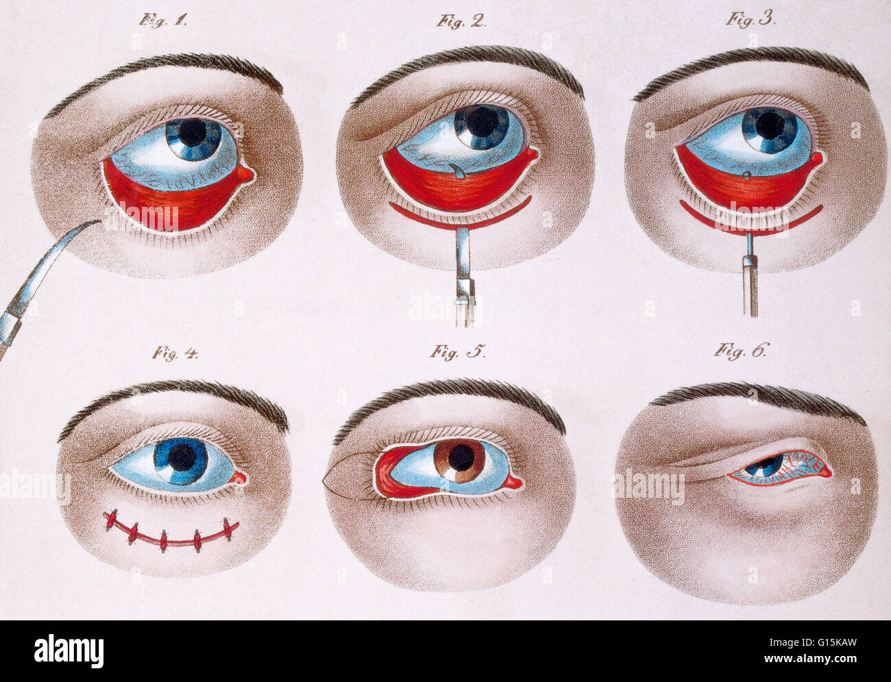 Illustration showing the surgical procedure to correct a lazy lower eyelid (ptosis), c. 1830. Ptosis is a drooping - Stock Image