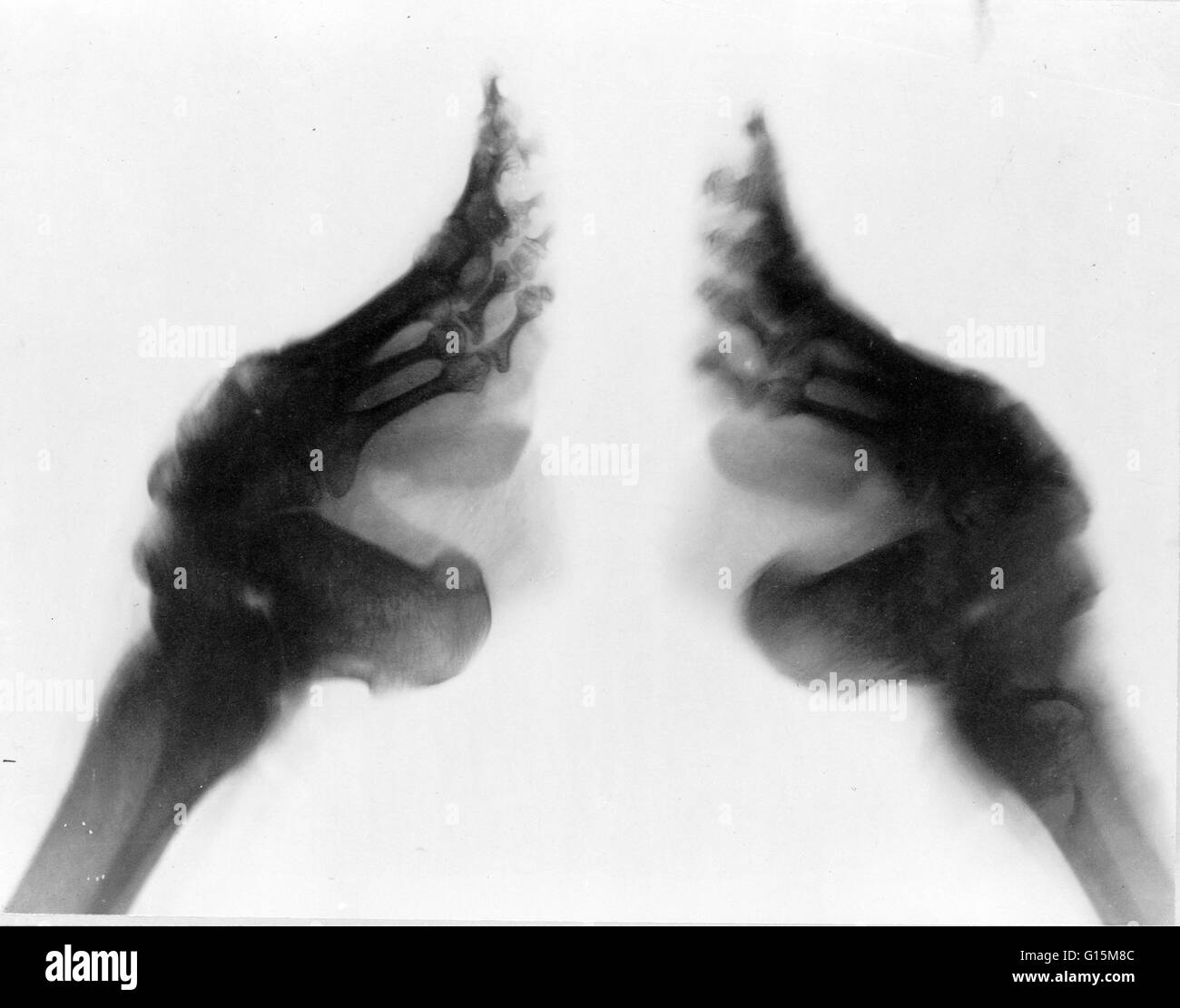 X-ray of bound feet, China, between 1890 and 1923. Foot binding was the custom of binding the feet of young girls - Stock Image