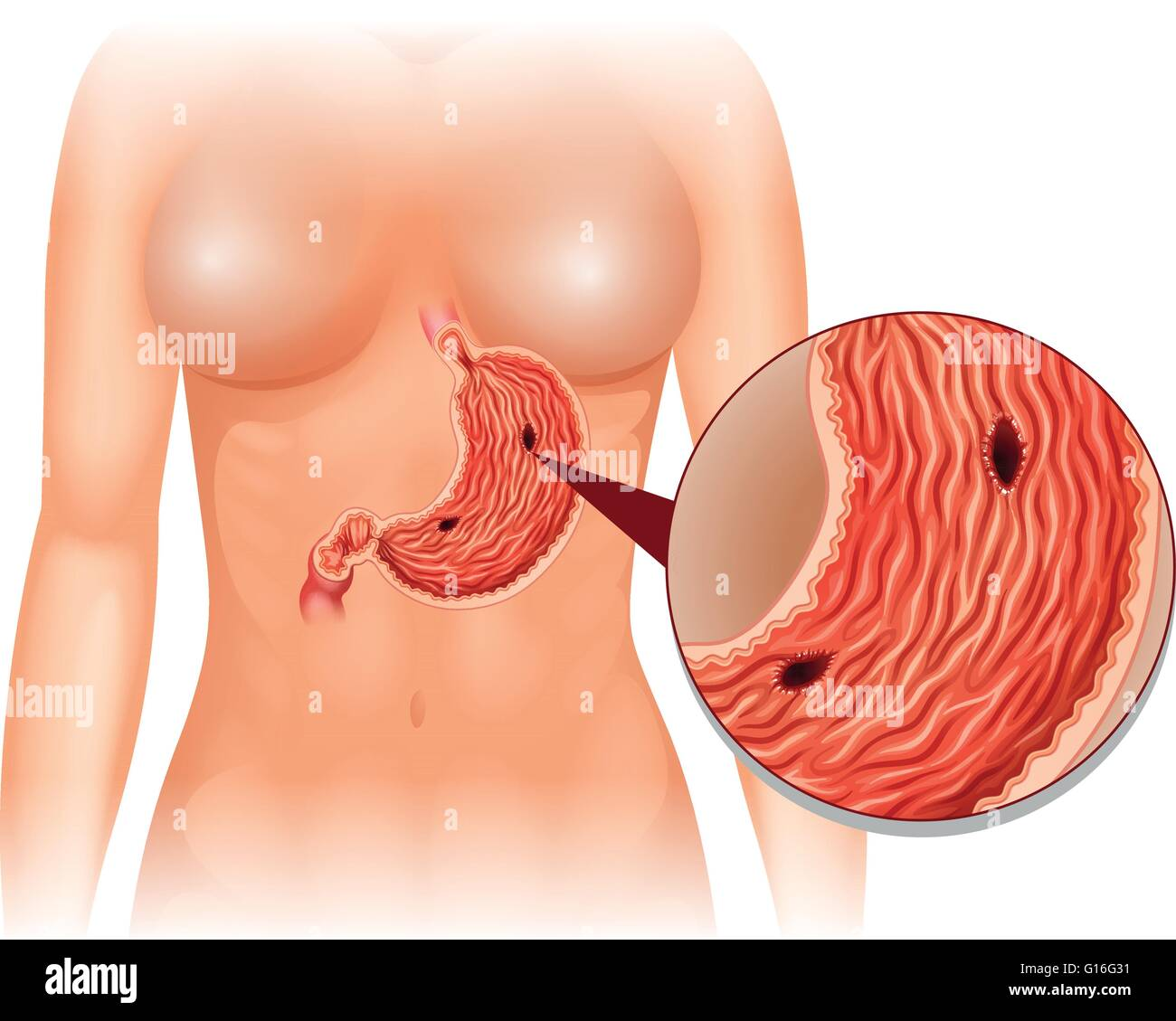 stomach ulcer diagram in woman illustration G16G31 stomach ulcer diagram in woman illustration stock vector art