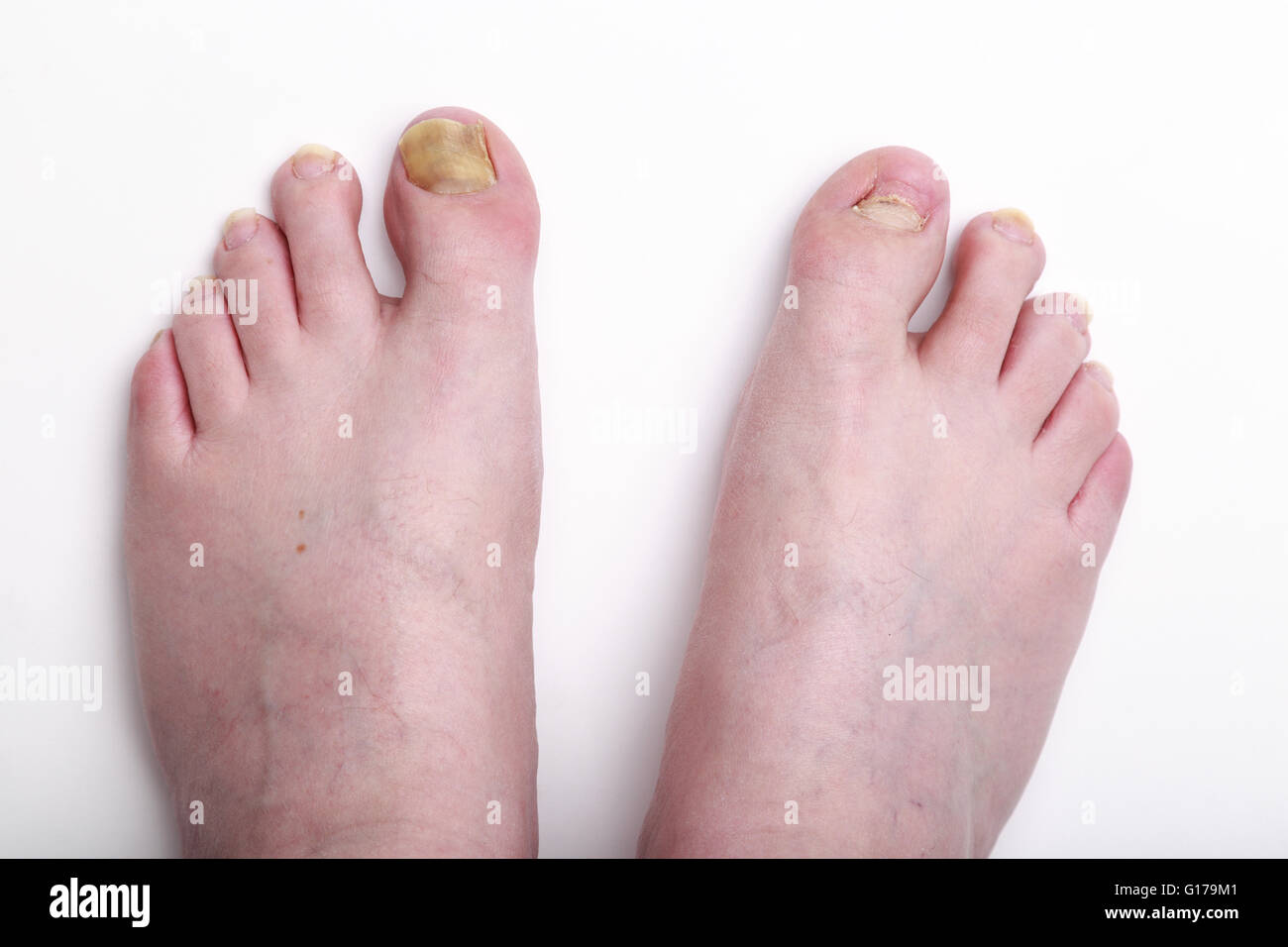 40 Year old caucasian man's feet showing missing toenail and discolouration of nails six months after end of - Stock Image