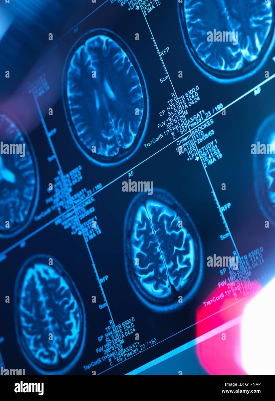 Human brain scan in a neurology clinic - Stock Image
