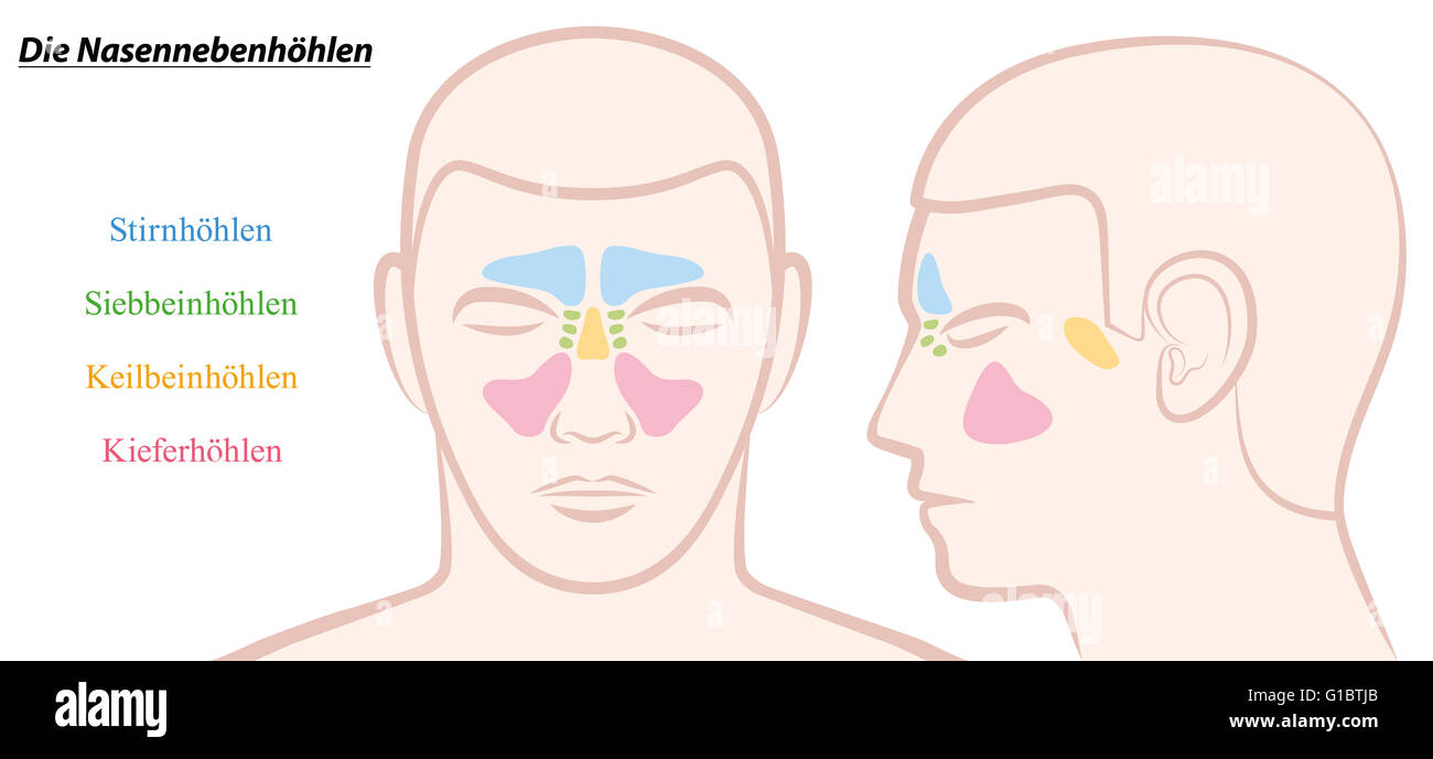 Paranasal sinuses on a male face in different colors - GERMAN TEXT! - Stock Image