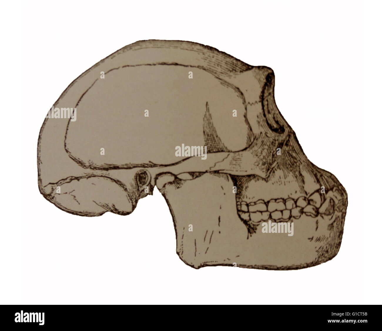 Illustration Depicting The Java Man Skull A Name Given To Early