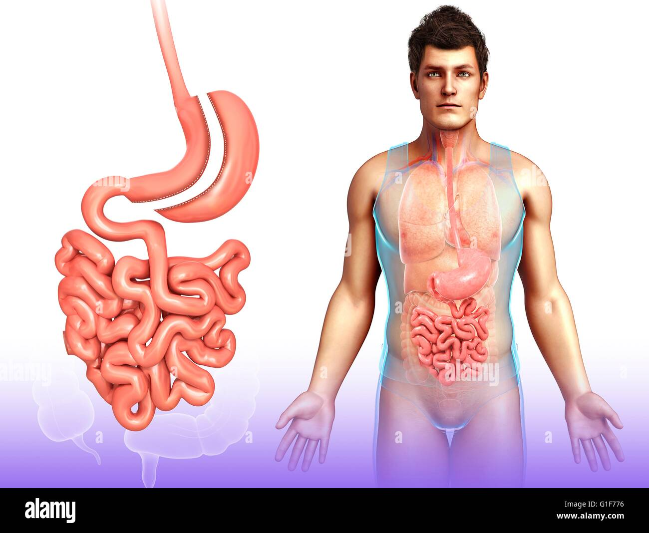 Sleeve Gastrectomy Surgical Weight Loss Surgery Illustration
