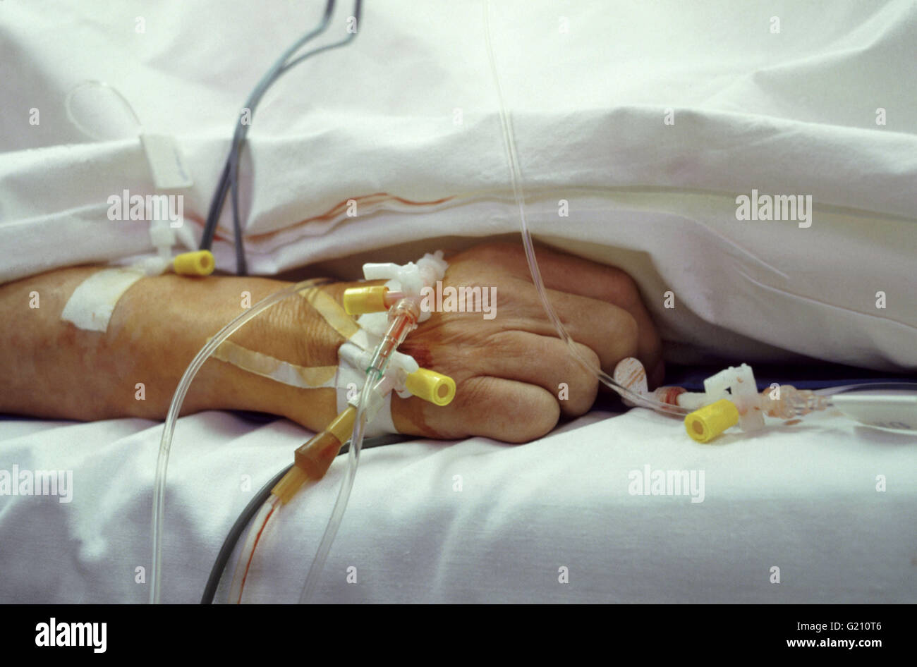 A patient's hand with intravenous hookups in Intensive Care Unit - Stock Image
