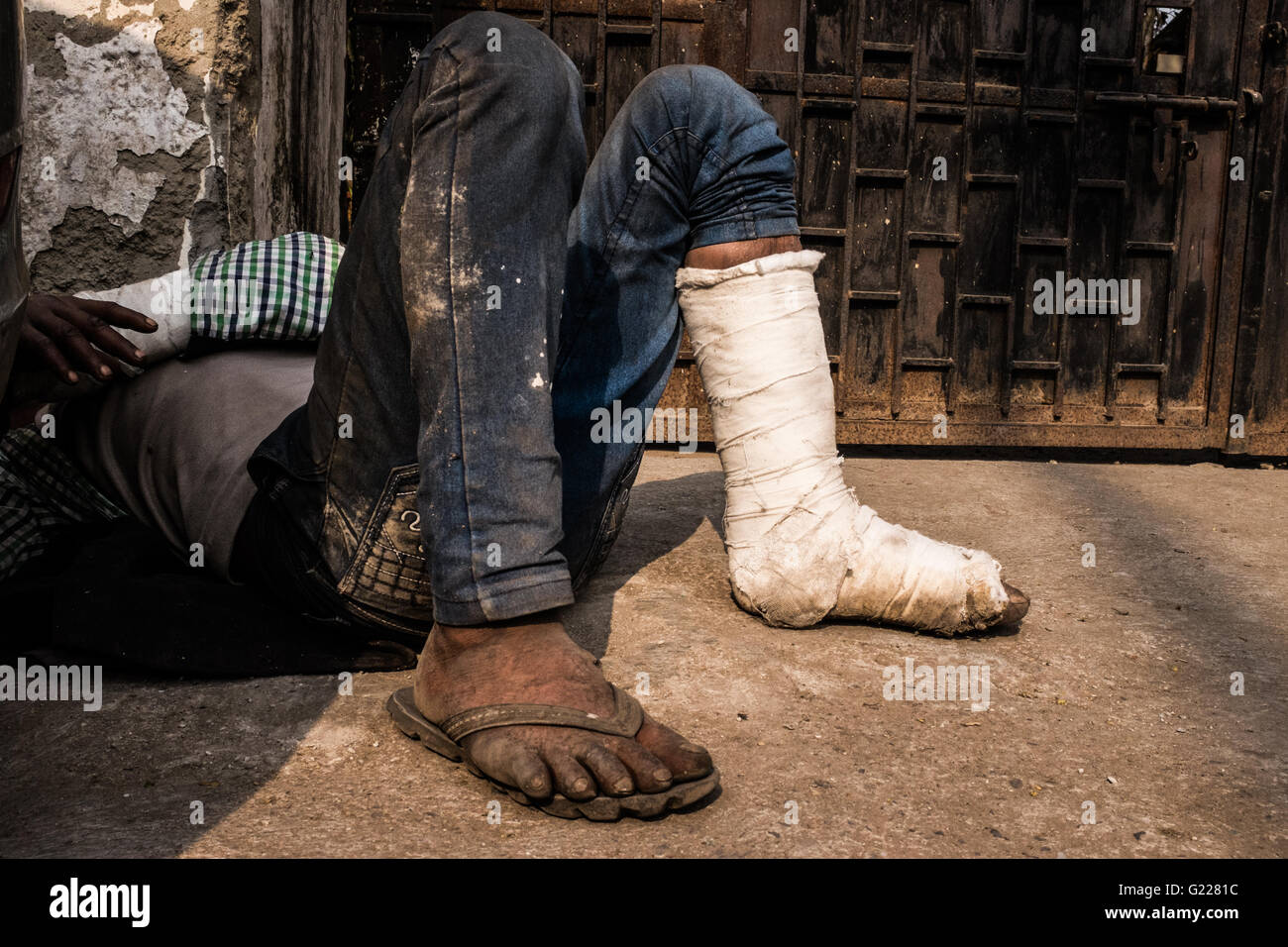 Man with cast on his foot & hand sleeping on the floor in Delhi