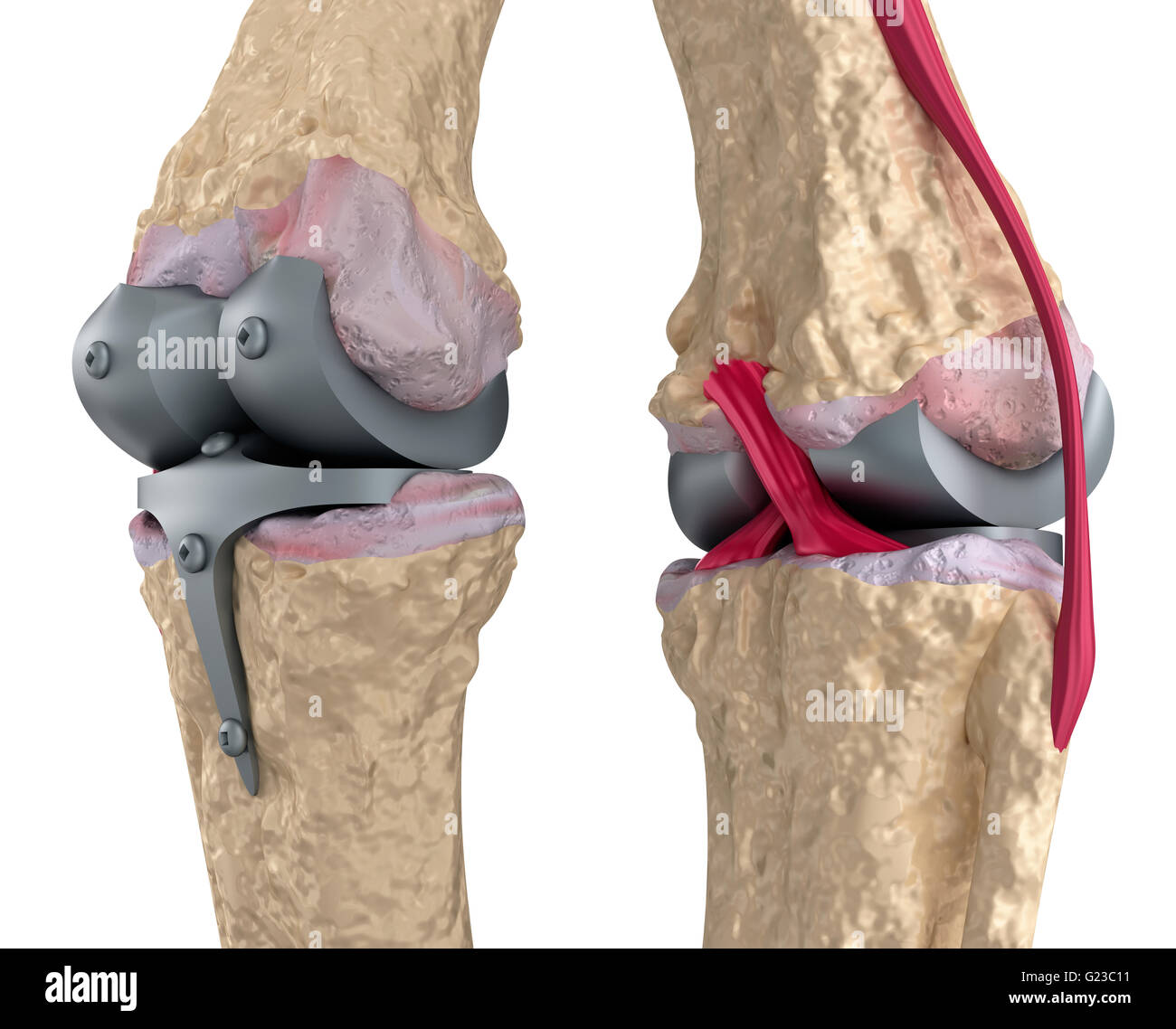 Knee and titanium hinge joint. Isolated on white Stock Photo ...