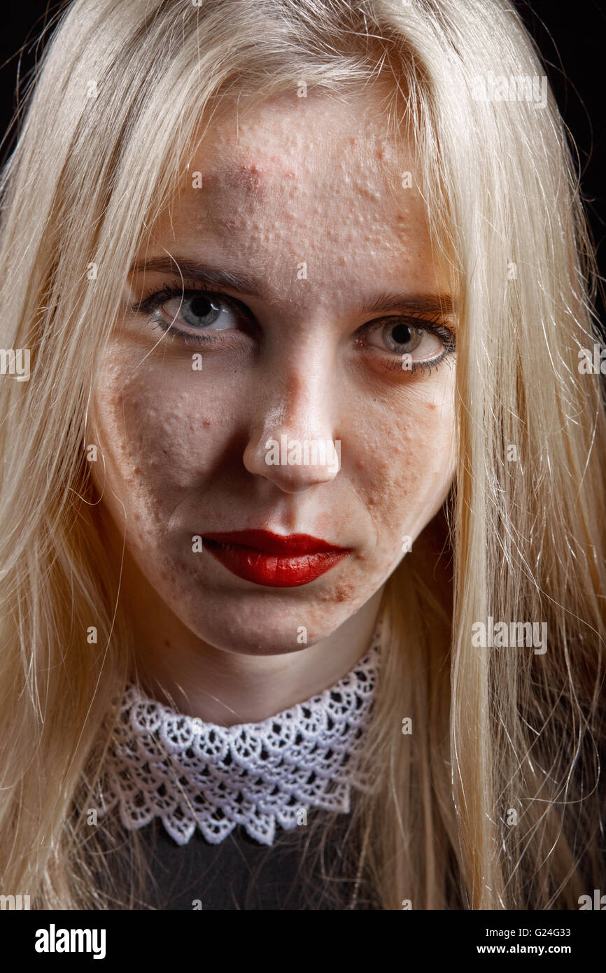 Pretty Teen Girl Acne Looking High Resolution Stock Photography