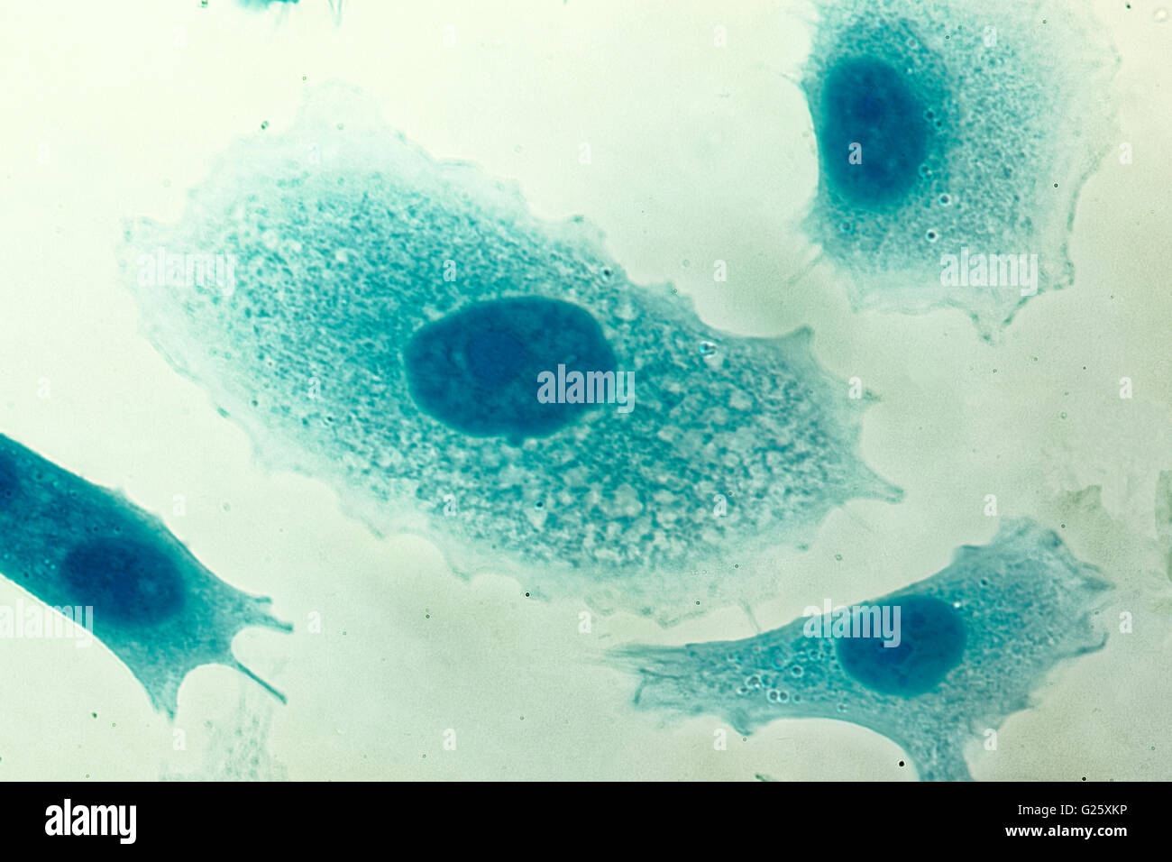 PC-3 human prostate cancer cells, stained with Coomassie blue, under differencial interference contrast microscope. - Stock Image